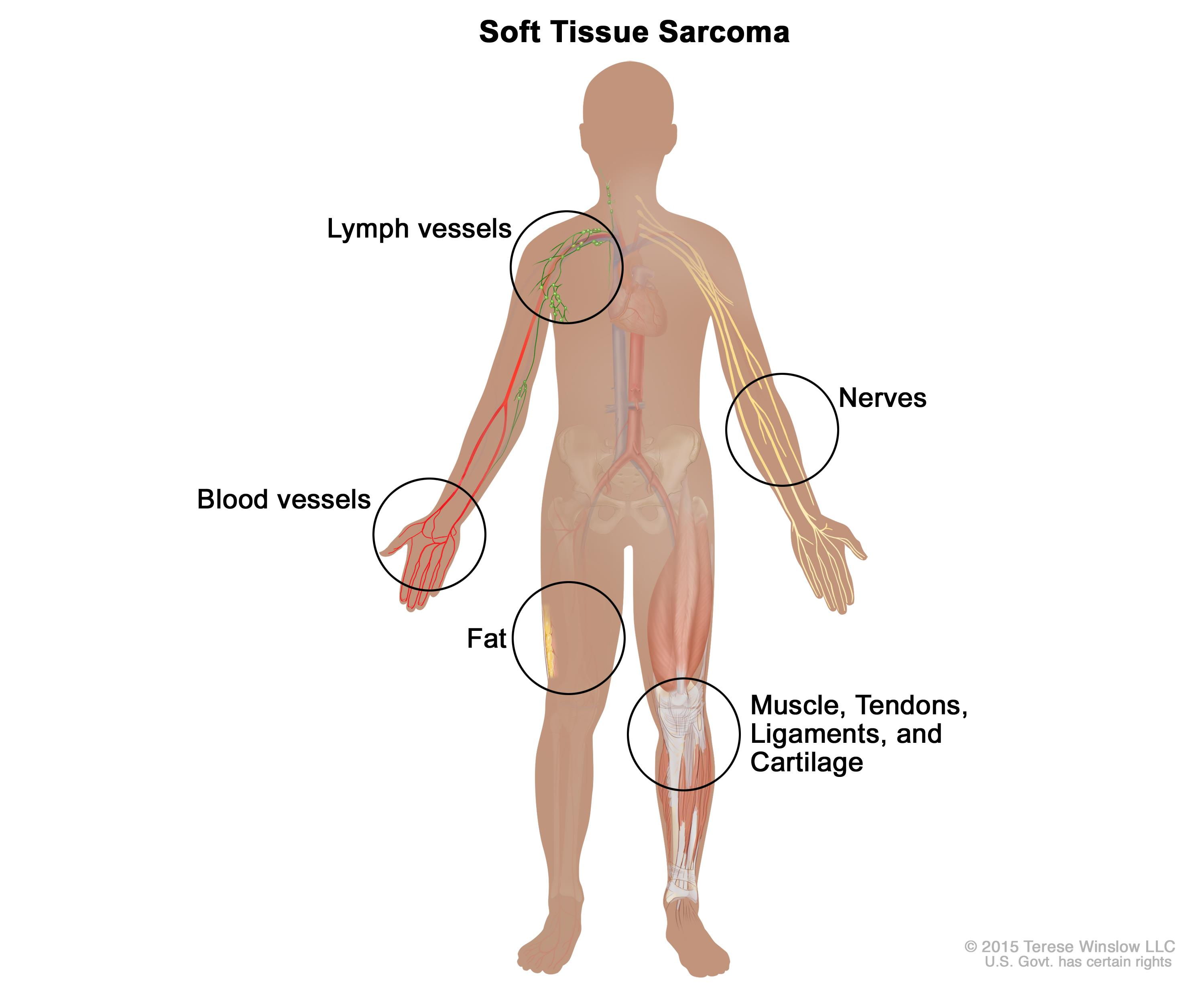 Soft tissue sarcoma; drawing shows different types of tissue in the body where soft tissue sarcomas form, including the lymph vessels, blood vessels, fat, muscles, tendons, ligaments, cartilage, and nerves.