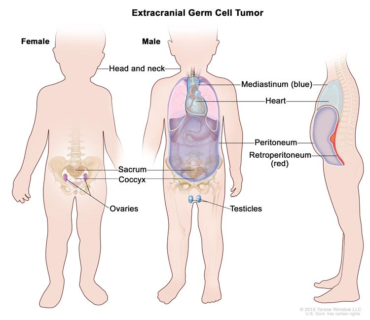 Extracranial germ cell tumor; drawing shows parts of the body where extracranial germ cell tumors may form, including the mediastinum (the area between the lungs), retroperitoneum (the area behind the abdominal organs), sacrum, coccyx, testicles (in males), and ovaries (in females). Also shown are the heart and peritoneum.