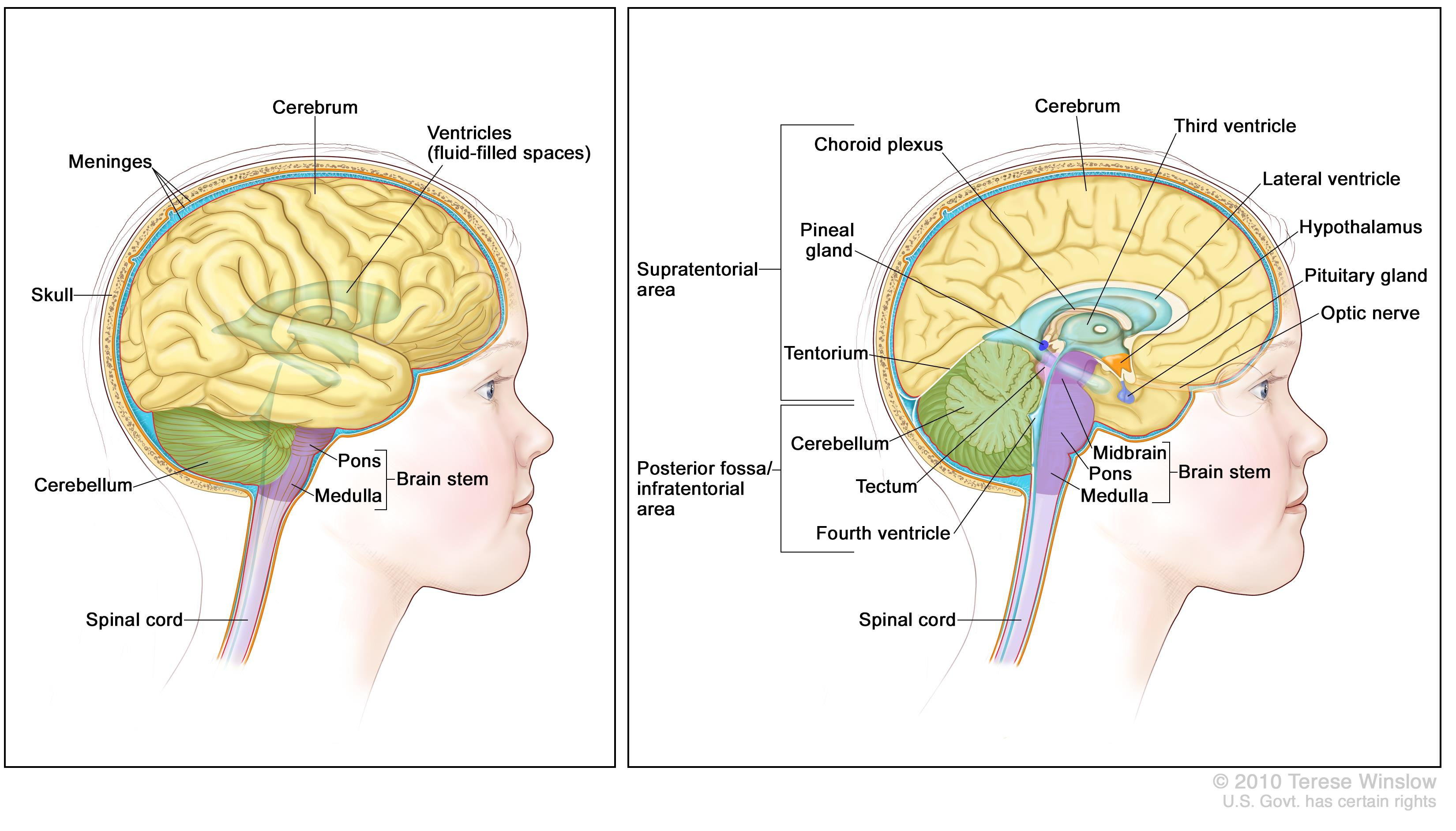 Anatomy of the brain; the right panel shows the supratentorial area (the upper part of the brain) and the posterior fossa/infratentorial area (the lower back part of the brain). The supratentorial area contains the cerebrum, lateral ventricle and third ventricle (with cerebrospinal fluid shown in blue), choroid plexus, pineal gland, hypothalamus, pituitary gland, and optic nerve. The posterior fossa/infratentorial area contains the cerebellum, tectum, fourth ventricle, and brain stem (midbrain, pons, and medulla). The tentorium and spinal cord are also shown. The left panel shows the cerebrum, ventricles (fluid-filled spaces), meninges, skull, cerebellum, brain stem (pons and medulla), and spinal cord.