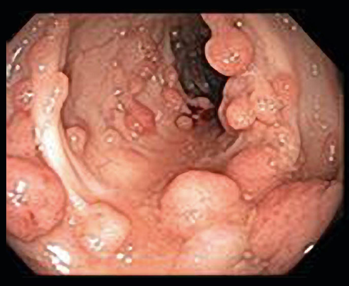Many polyps protrude from the inner lining of the colon.