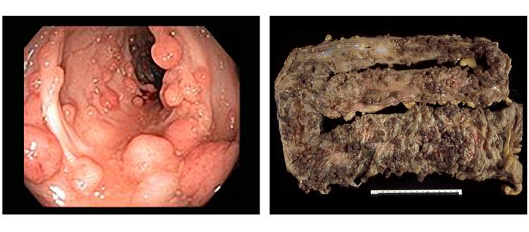 Many polyps protrude from the inner lining of the colon (left panel) and are present on a surgically removed colon (right panel).