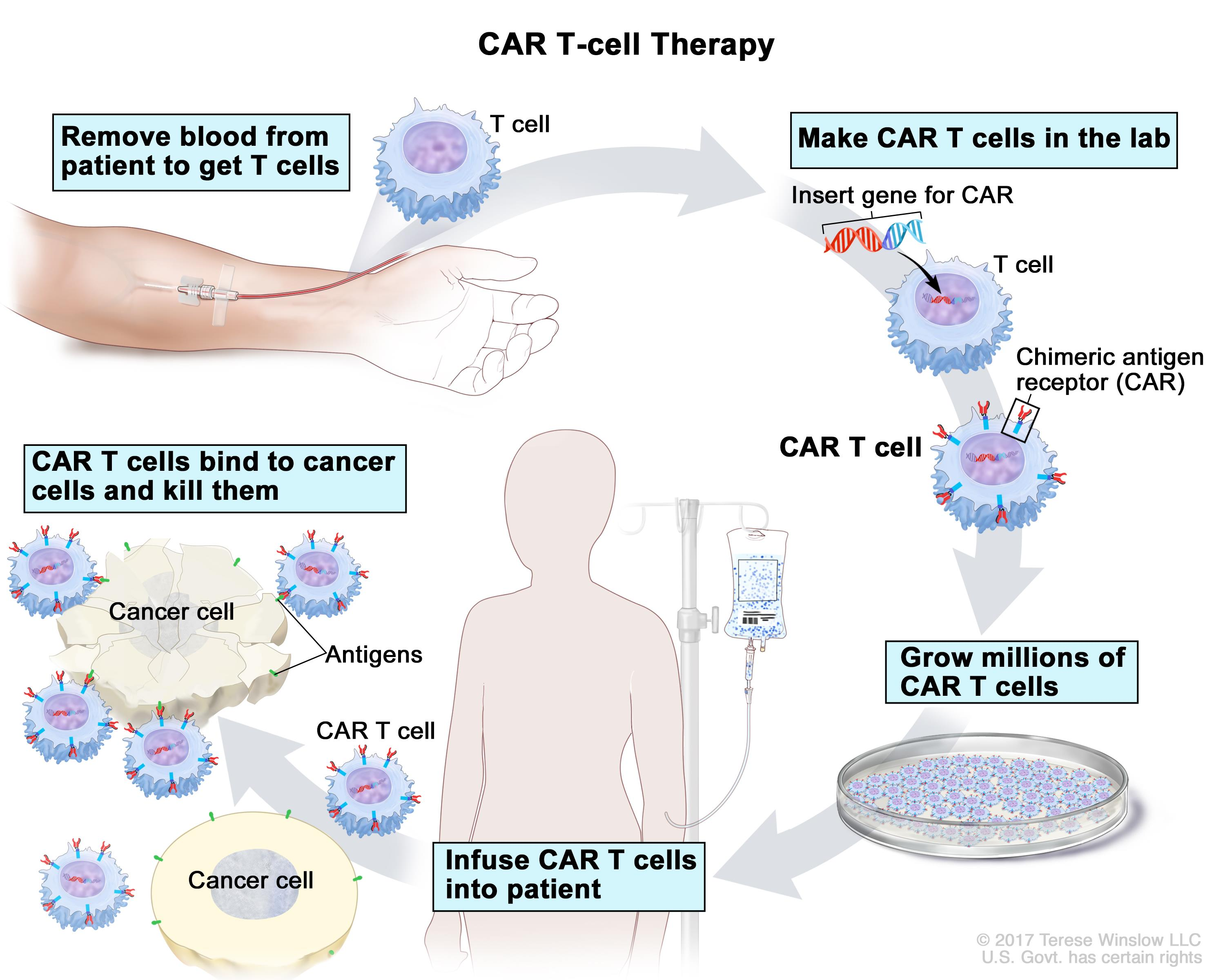 CAR T-cell therapy; drawing of blood being removed from a vein in a patient's arm to get T cells. Also shown is a special receptor called a chimeric antigen receptor (CAR) being made in the laboratory; the gene for CAR is inserted into the T cells and then millions of CAR T cells are grown. Drawing also shows the CAR T cells being given to the patient by infusion and binding to antigens on the cancer cells and killing them.