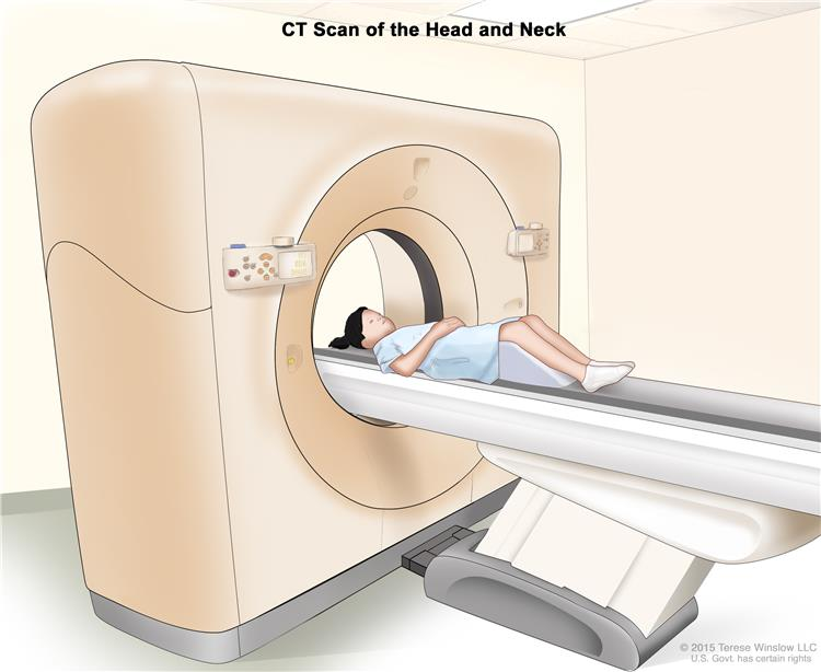 Computed tomography (CT) scan of the head and neck; drawing shows a child lying on a table that slides through the CT scanner, which takes x-ray pictures of the inside of the head and neck.