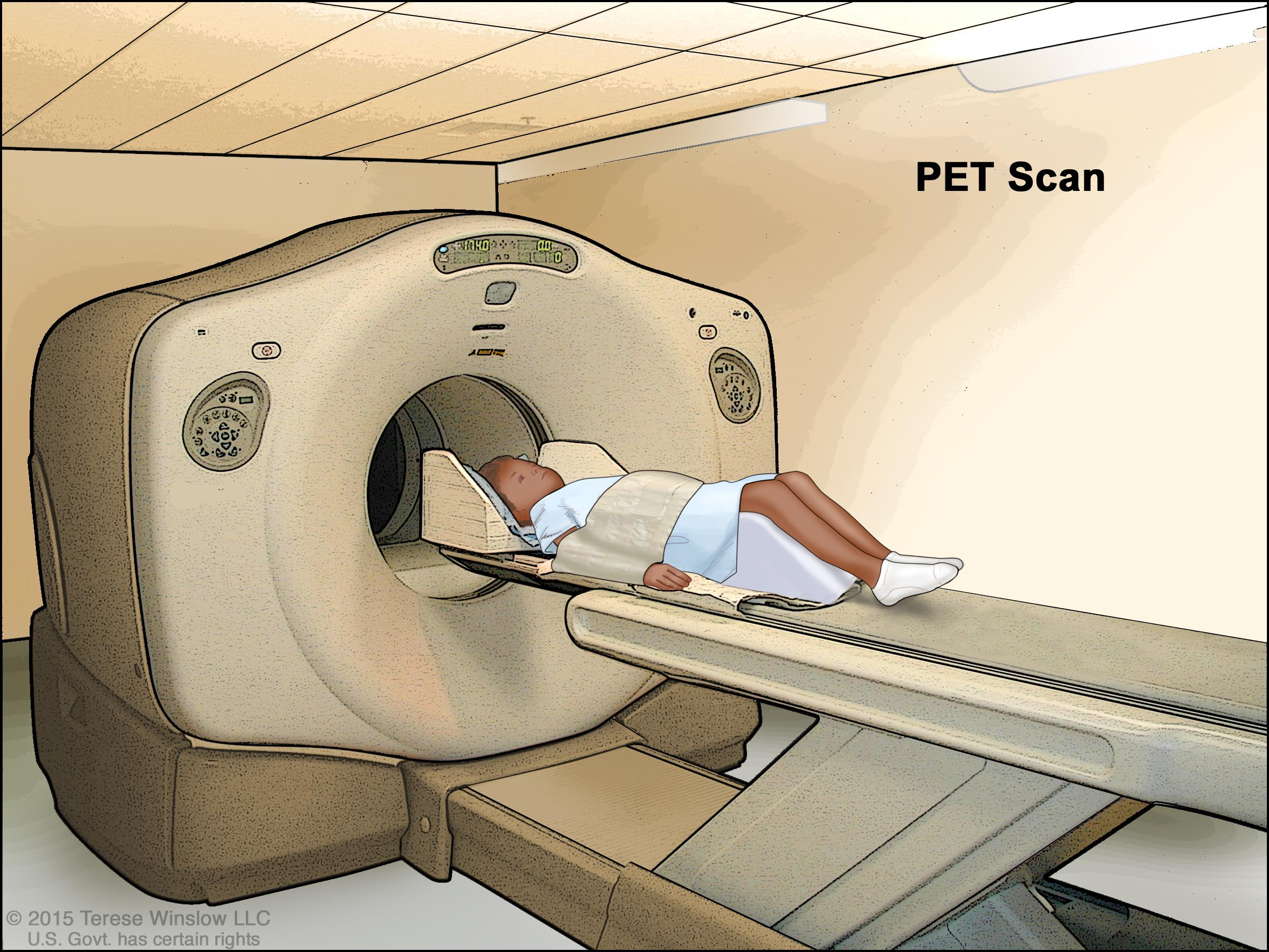 Positron emission tomography (PET) scan; drawing shows a child lying on table that slides through the PET scanner.