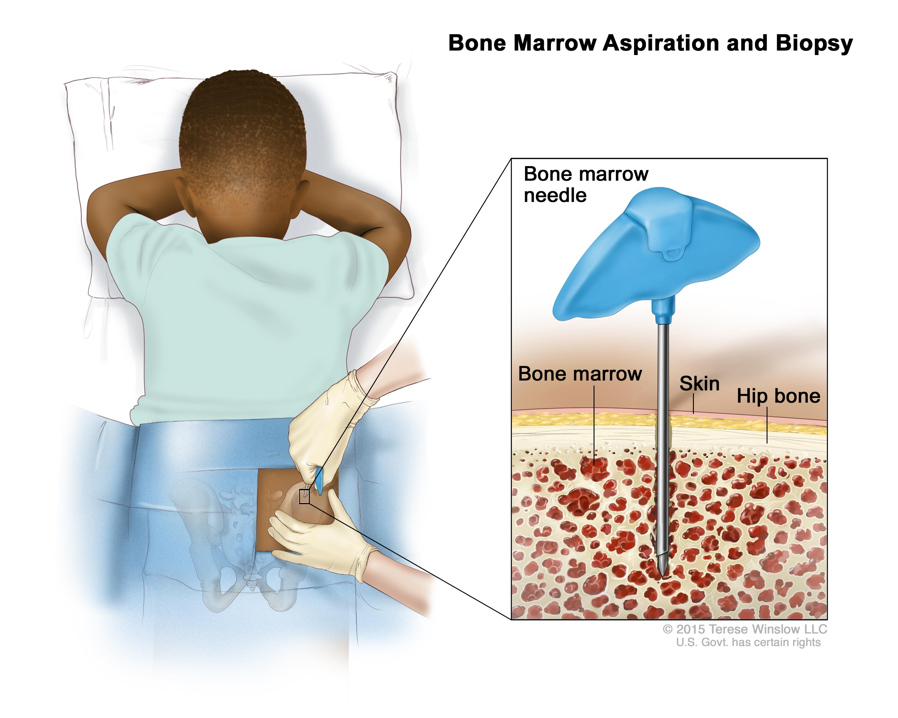 What does Stage 2 of Bone Cancer Mean