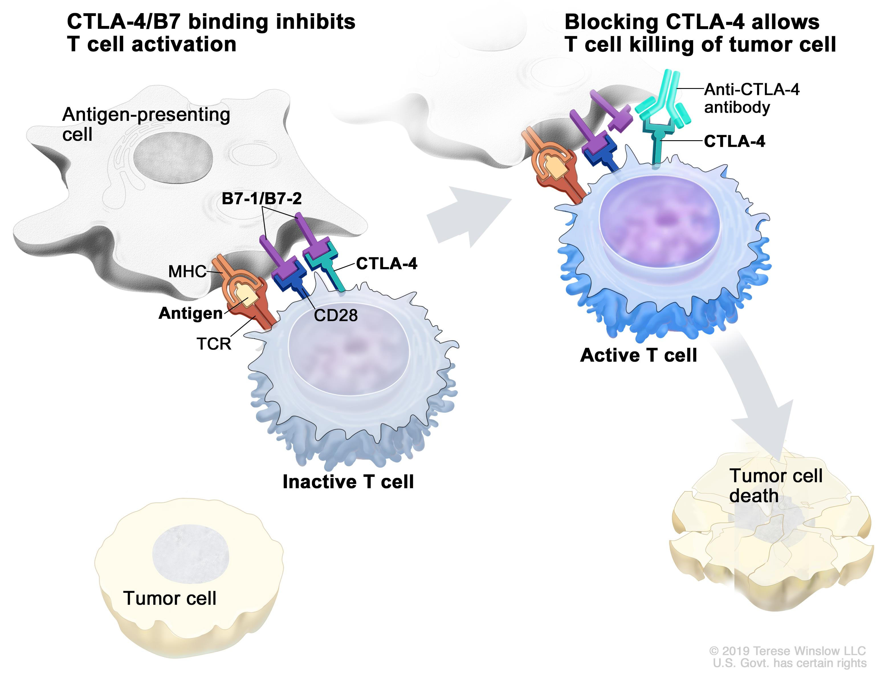 Immune checkpoint inhibitor; the panel on the left shows the binding of proteins B7-1/B7-2 (on the tumor cell) to CTLA-4 (on the T cell), which keeps T cells from killing tumor cells in the body. Also shown are a tumor cell antigen and T cell receptor. The panel on the right shows immune checkpoint inhibitors (anti-B7-1/B7-2 and anti-CTLA-4) blocking the binding of B7-1/B7-2 to CTLA-4, which allows the T cells to kill tumor cells.