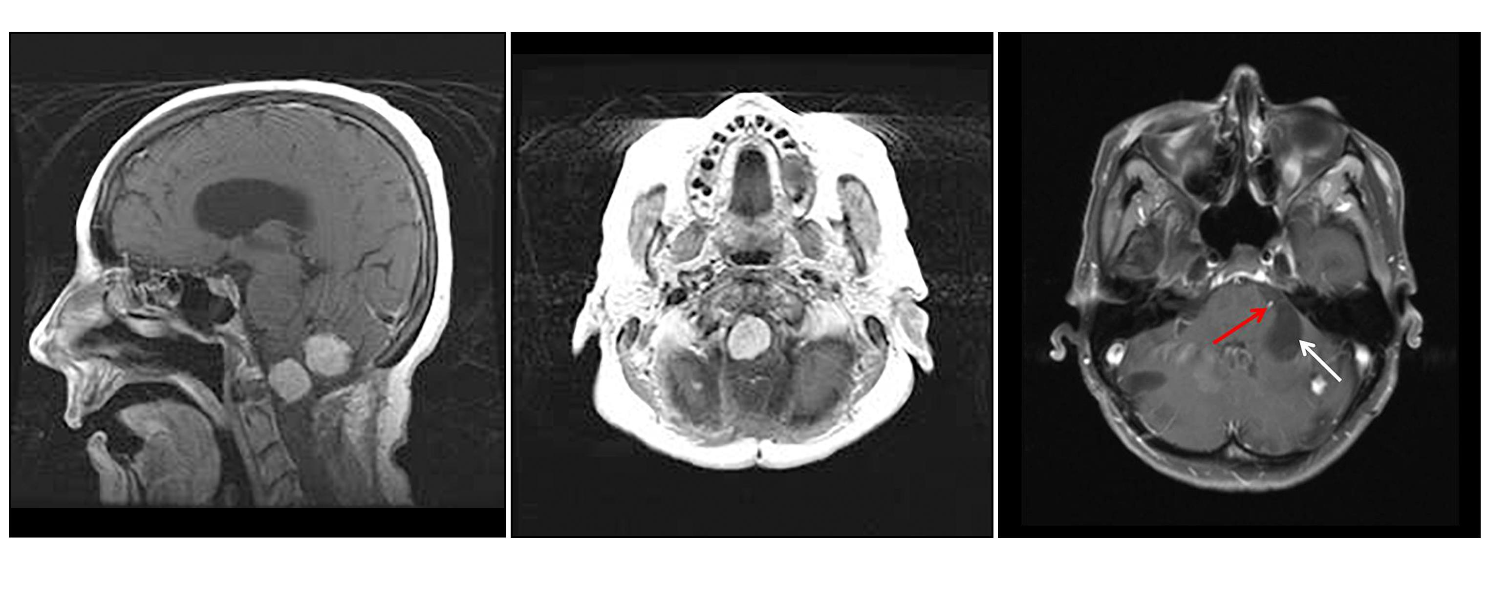 Three-panel image showing a sagittal view of two prominent light-colored brainstem and cerebellar lesions (left panel), an axial view of a prominent brainstem lesion (middle panel), and an axial view of a cerebellar lesion with a large, dark area that is a cystic component (right panel).