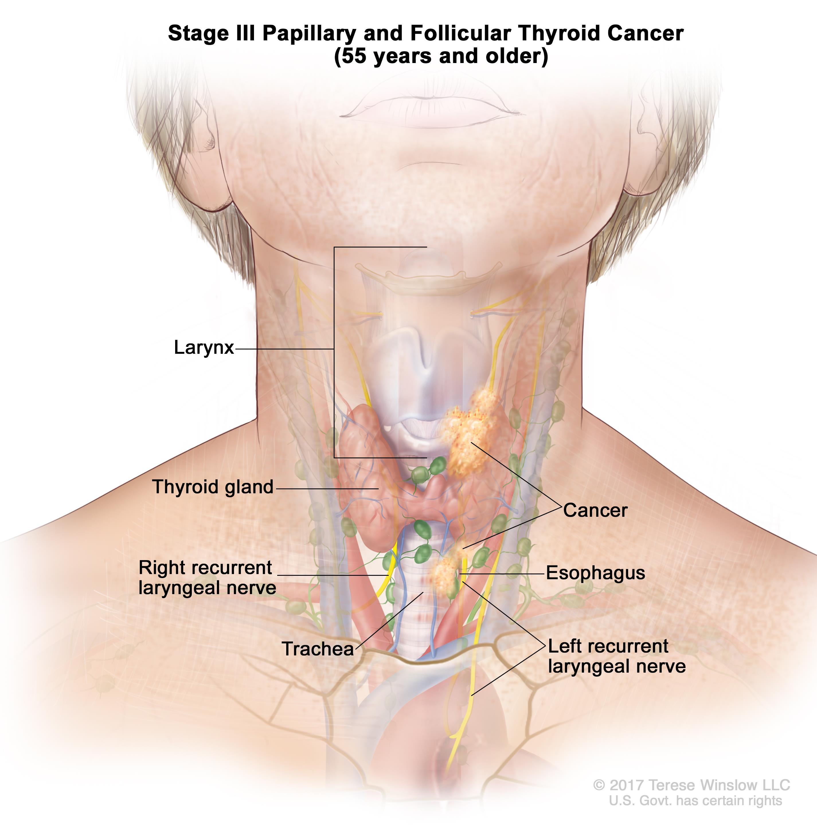 Stage III papillary and follicular thyroid cancer in patients 45 years and older; drawing shows (a) cancer in the thyroid gland and the tumor is larger than 4 centimeters; (b) cancer has spread to tissues just outside the thyroid gland; and (c) cancer has spread to lymph nodes near the trachea. Also shown is the larynx.