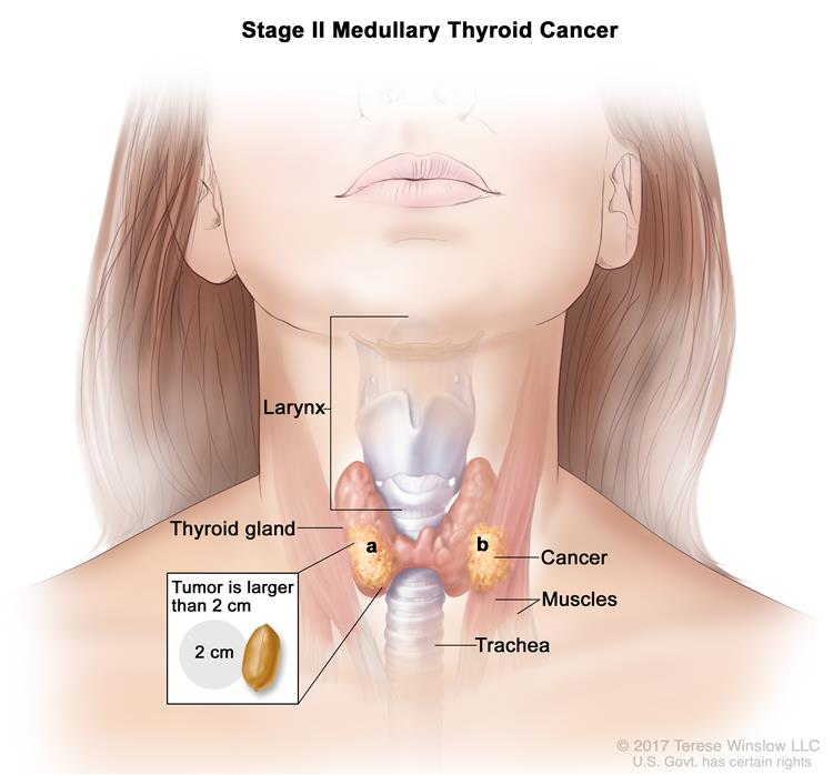 Stage II medullary thyroid cancer; drawing shows (a) cancer in the thyroid gland and the tumor is larger than 2 centimeters and (b) cancer has spread to nearby muscles in the neck. An inset shows 2 centimeters is about the size of a peanut. Also shown are the larynx and trachea.