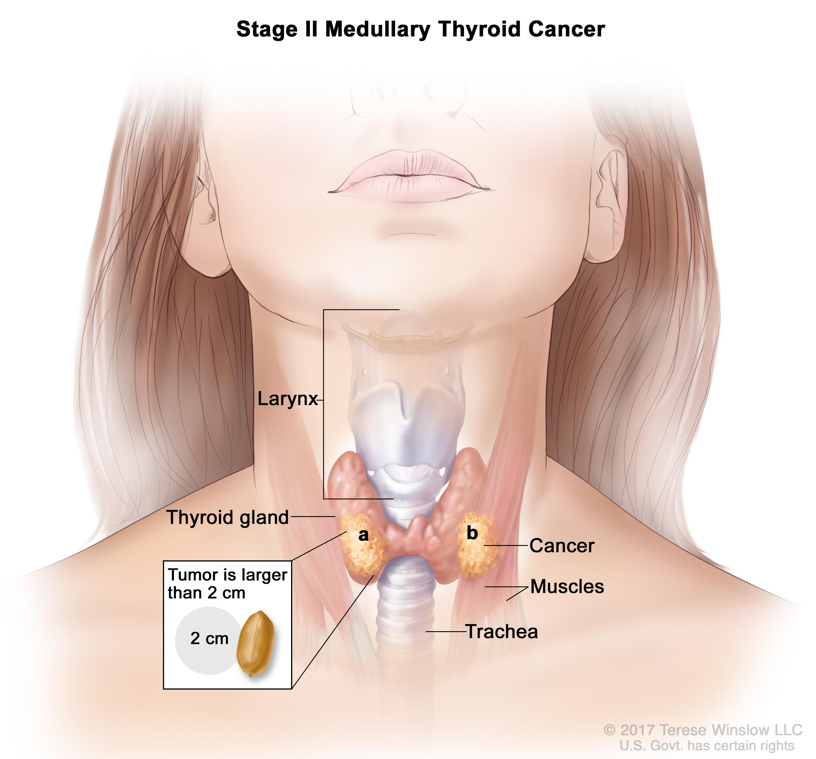 Stage II medullary thyroid cancer; drawing shows (a) cancer in the thyroid gland and the tumor is larger than 2 centimeters and (b) cancer has spread to tissues just outside the thyroid gland.  Also shown are the larynx and trachea.