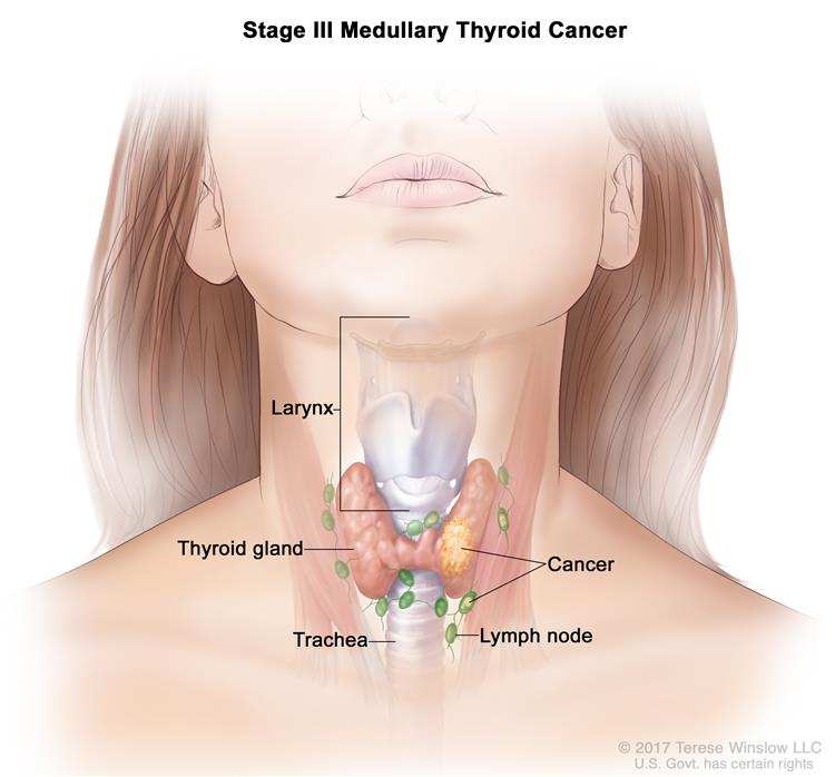 Stage III medullary thyroid cancer; drawing shows cancer in the thyroid gland and in nearby lymph nodes. Also shown are the trachea and larynx