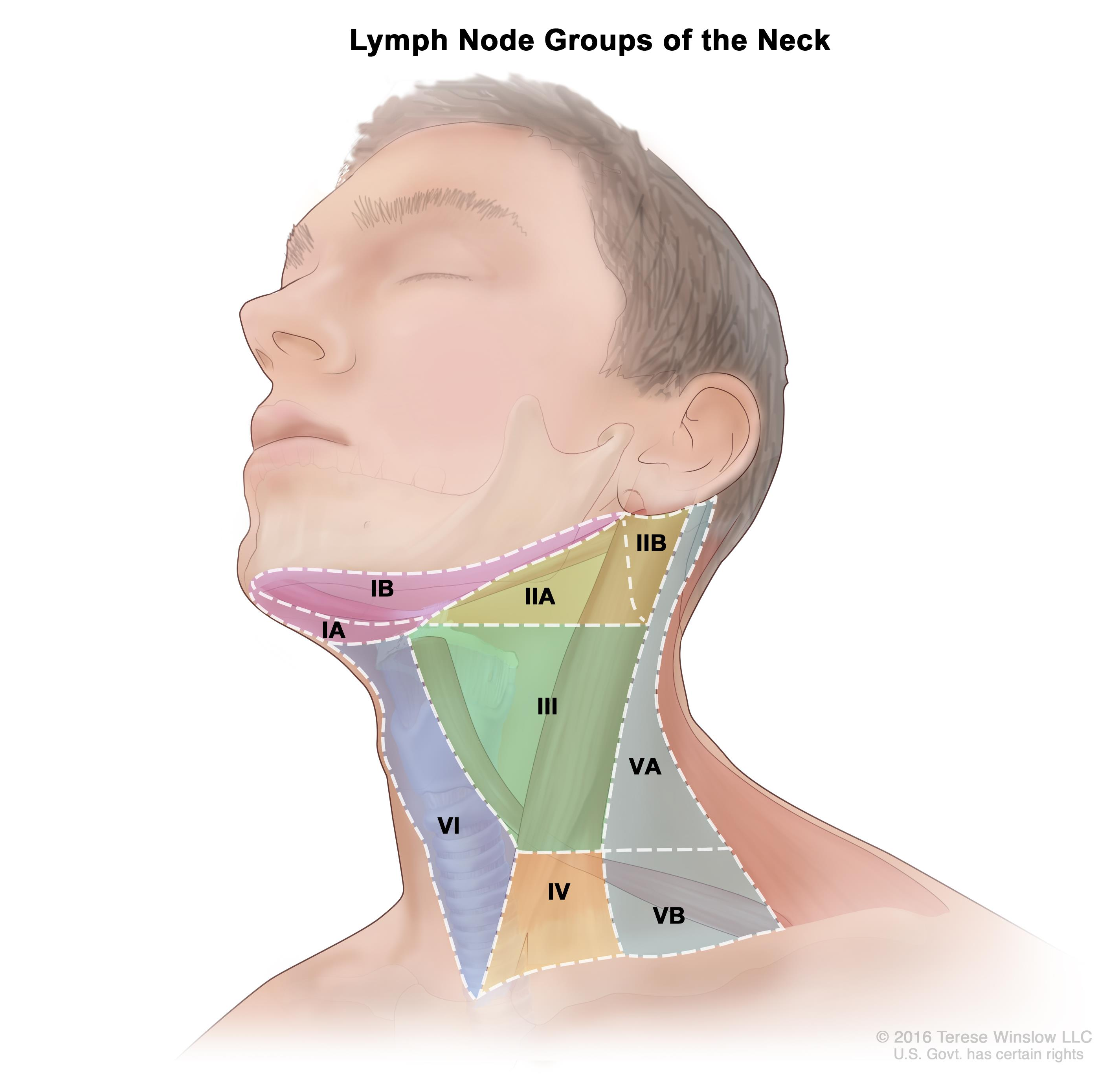 Lymph node groups of the neck; drawing shows six groups of lymph nodes in the neck: group IA and IB, group IIA and IIB, group III, group IV, group VA and VB, and group VI.