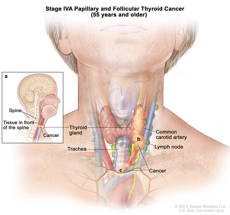 About Thyroid Cancer Head Neck Cancer Care Team University