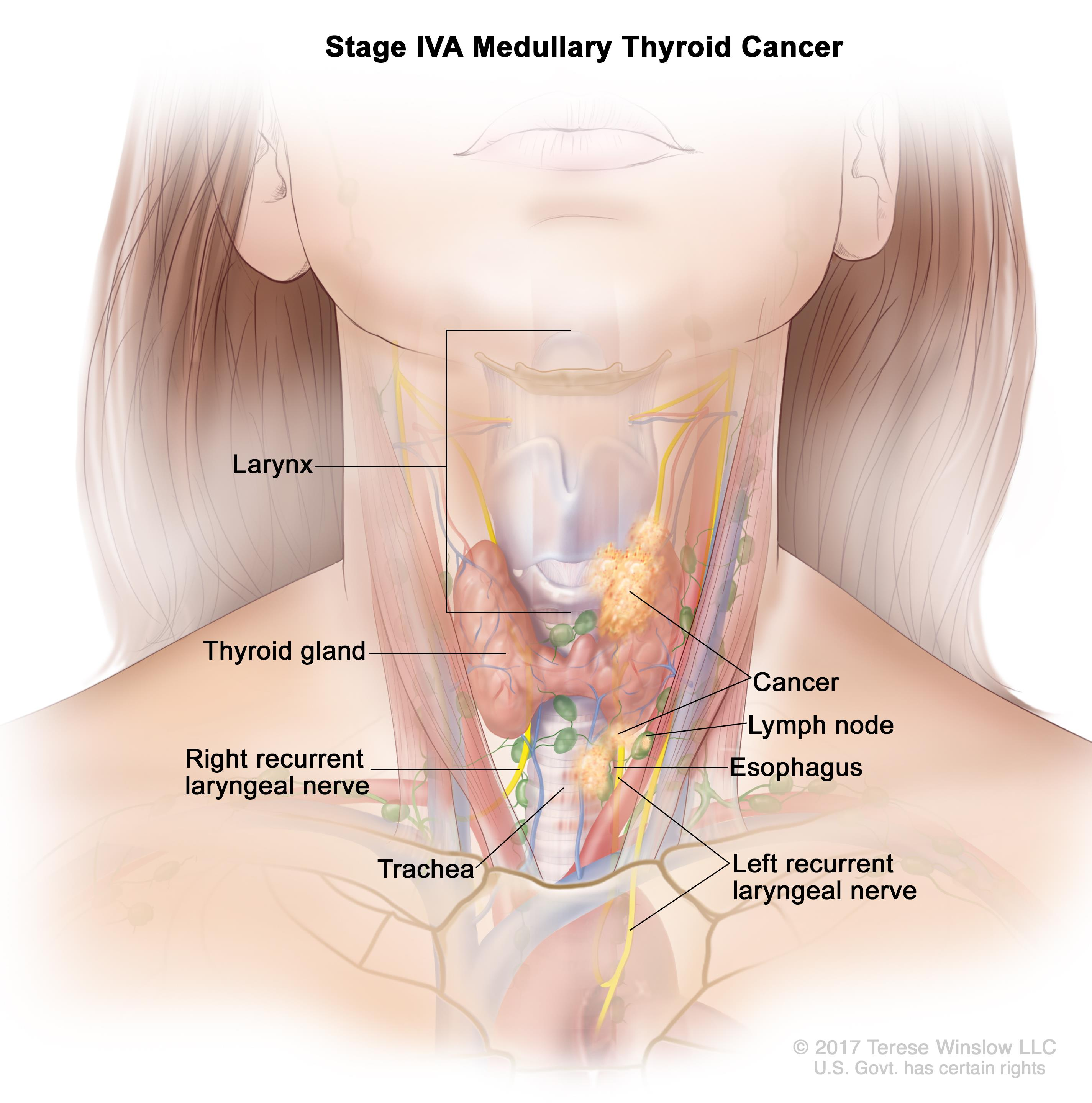Stage IVA medullary thyroid cancer; drawing shows cancer that has spread from the thyroid gland to the larynx, the esophagus, the left recurrent laryngeal nerve, the trachea, and a lymph node on one side of the neck. Also shown is the right recurrent laryngeal nerve.