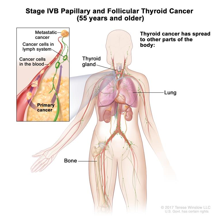 Stage IVB papillary and follicular thyroid cancer in patients 55 years and older; drawing shows other parts of the body where thyroid cancer may spread, including the lung and bone. An inset shows cancer cells spreading from the thyroid, through the blood and lymph system, to another part of the body where metastatic cancer has formed.