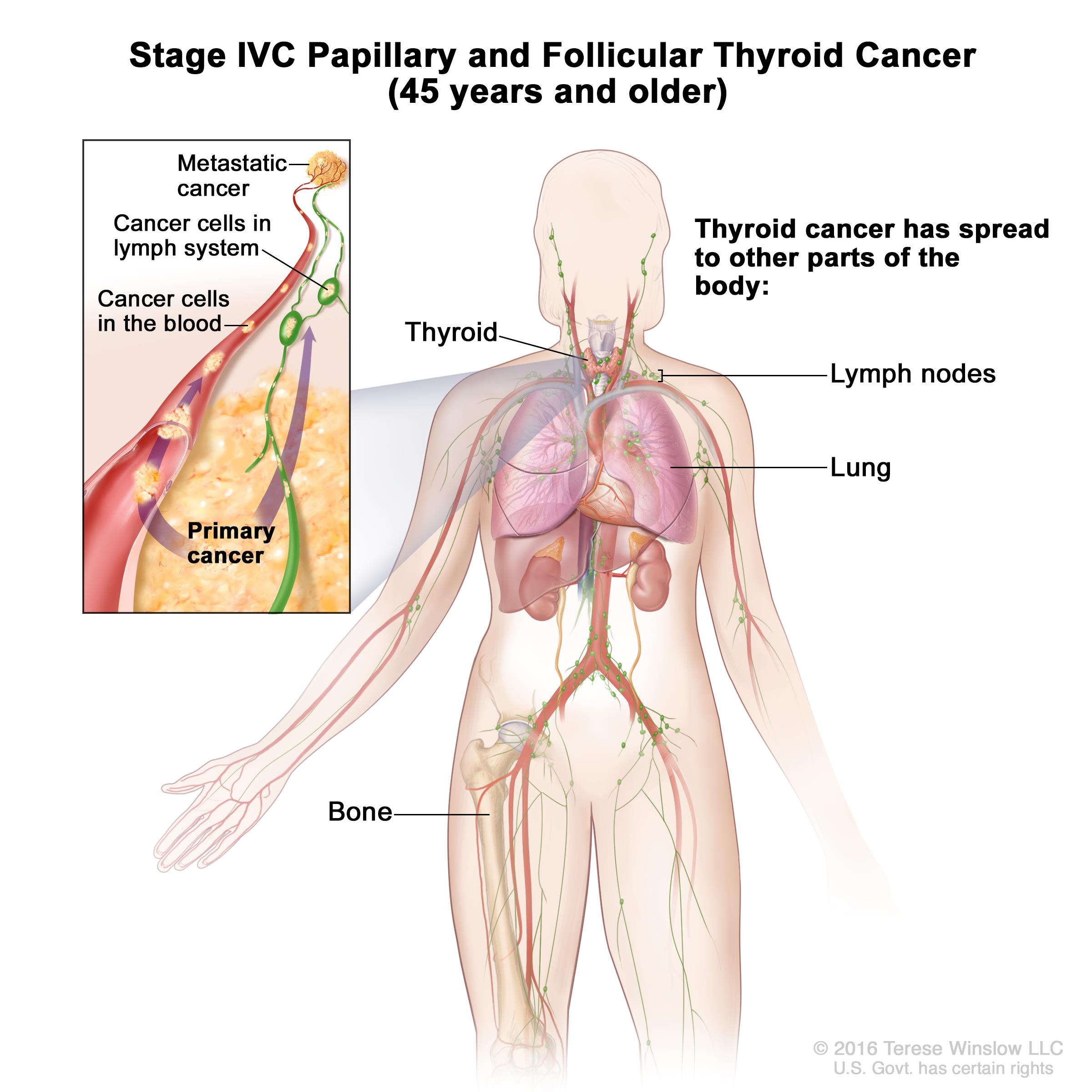 Stage IVC papillary and follicular thyroid cancer in patients 45 years and older; drawing show other parts of the body where thyroid cancer may spread, including the lymph nodes, lung, and bone. An inset shows cancer cells spreading from the thyroid, through the blood and lymph system, to another part of the body where metastatic cancer has formed.