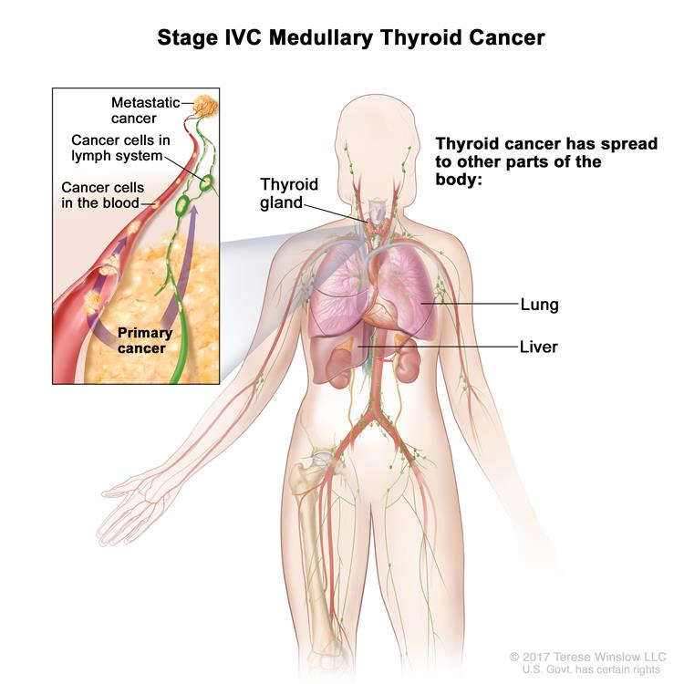 Stage IVC medullary thyroid cancer; drawing shows other parts of the body where thyroid cancer may spread, including the lung and liver. An inset shows cancer cells spreading from the thyroid, through the blood and lymph system, to another part of the body where metastatic cancer has formed.