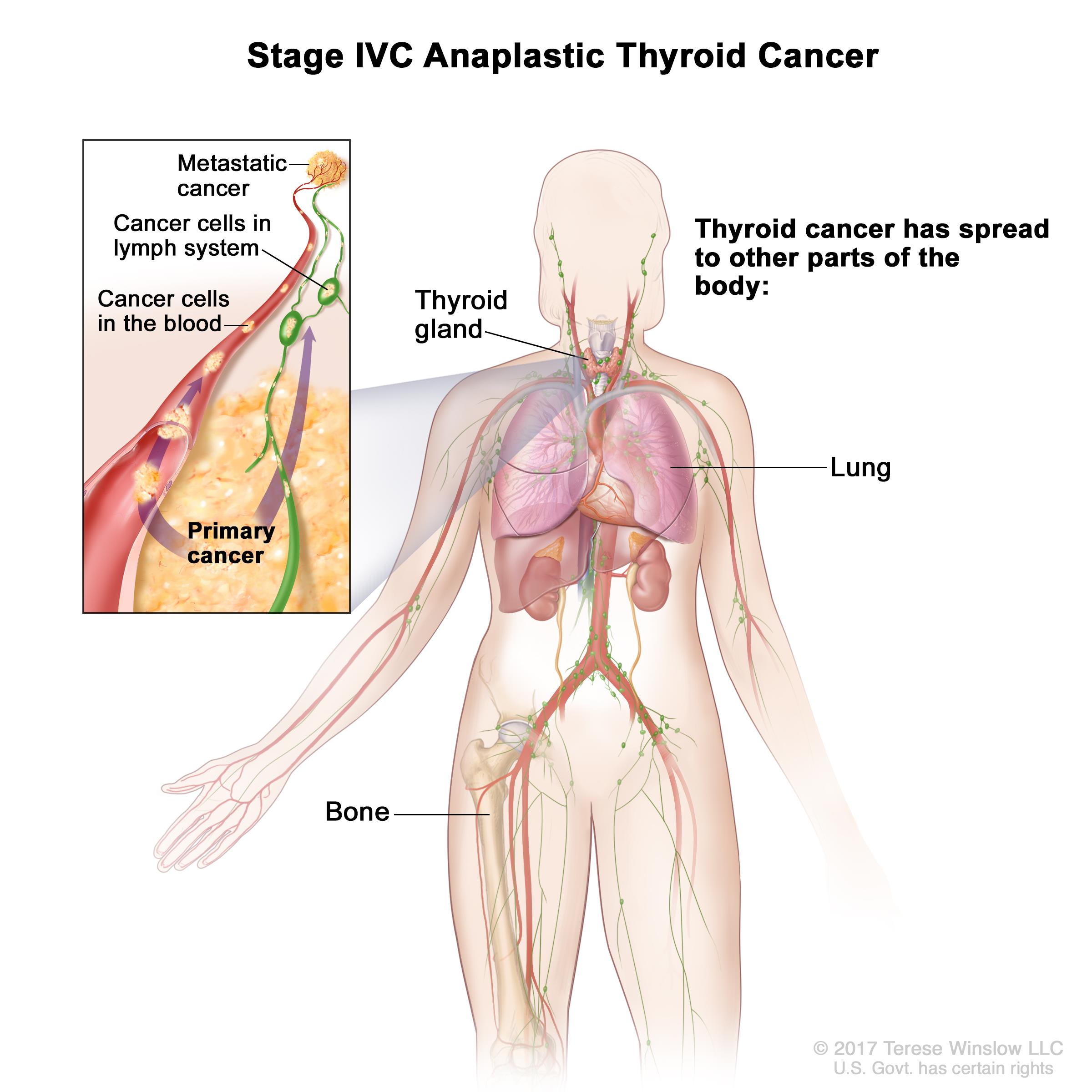 Thyroid Cancer Treatment Adult Pdq Patients Oncolink
