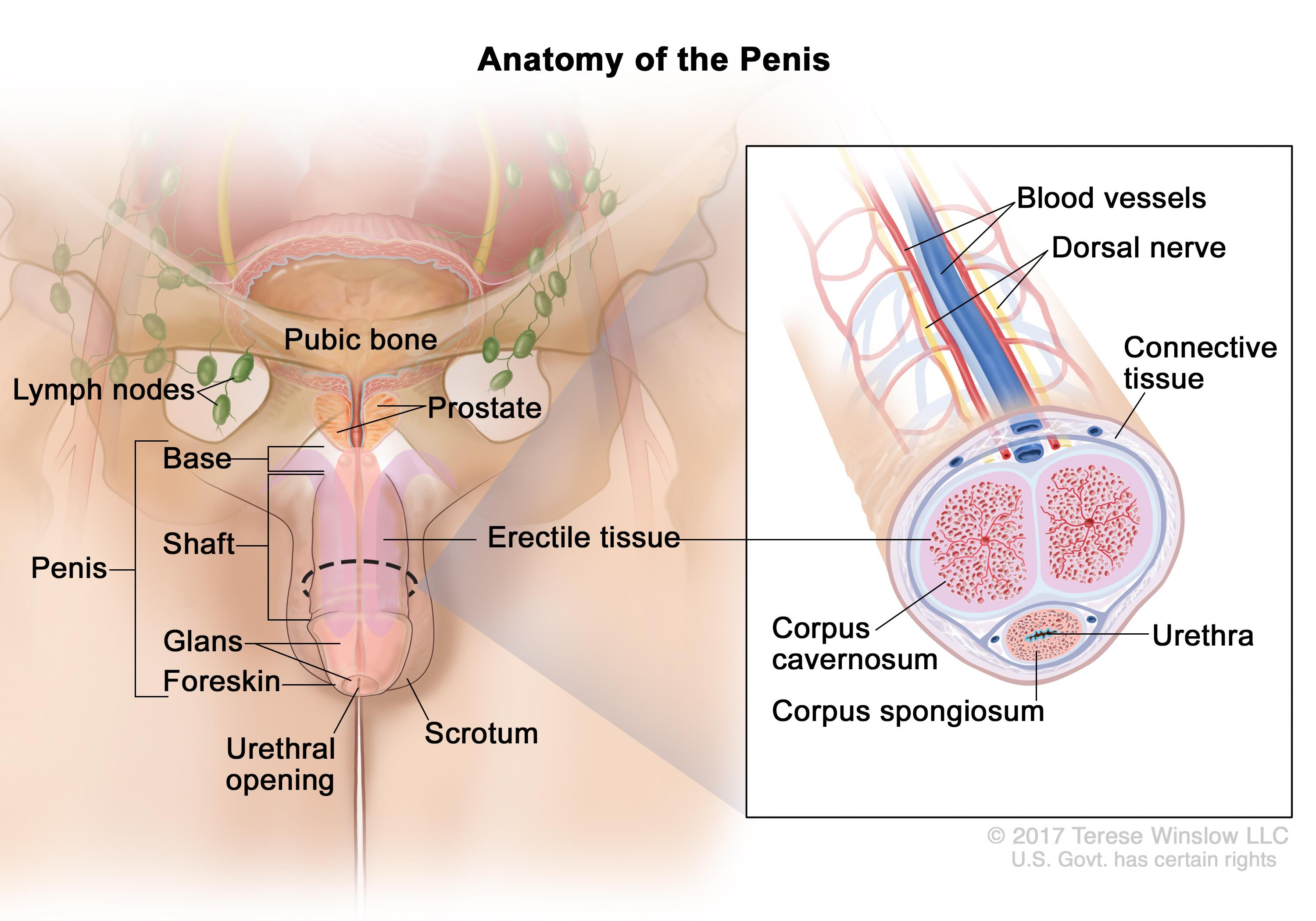 Penile Cancer Treatment Pdq Patients Oncolink
