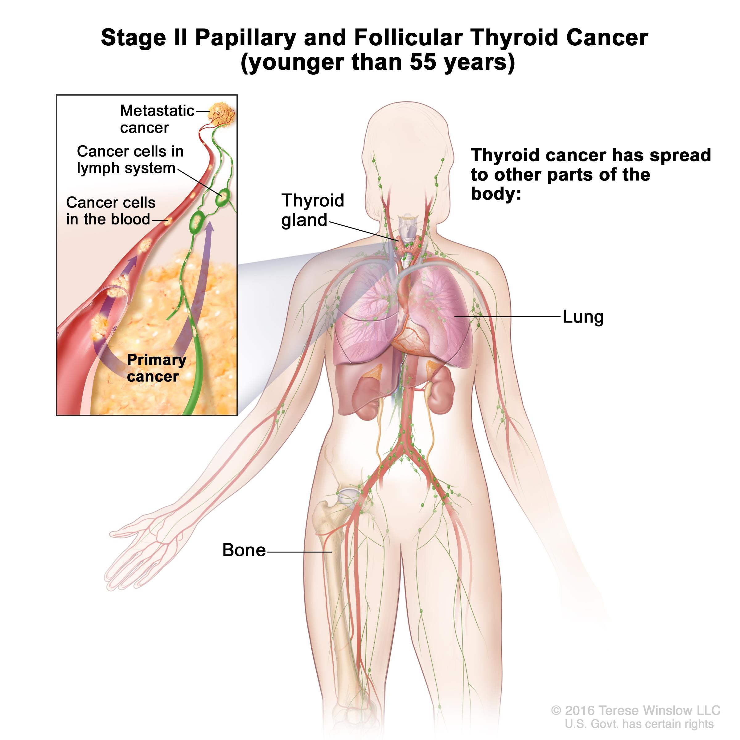 thyroid cancer treatment (pdq®)—patient version - national cancer