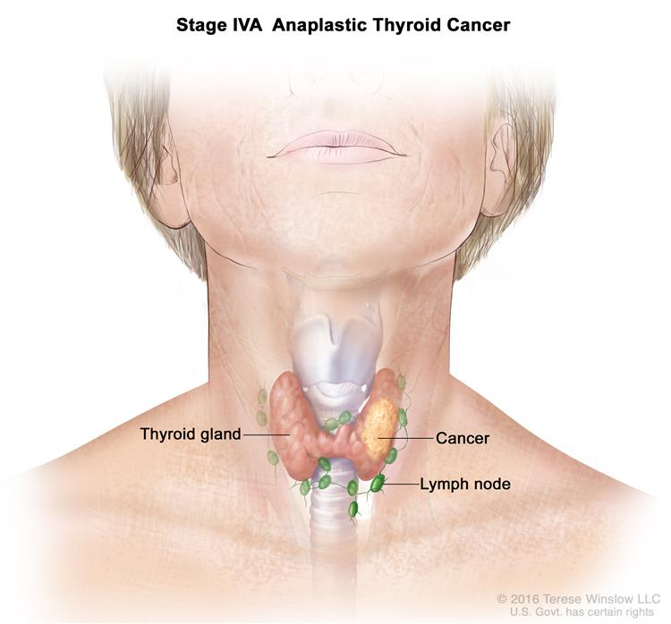 Thyroid Cancer Treatment National Cancer Institute
