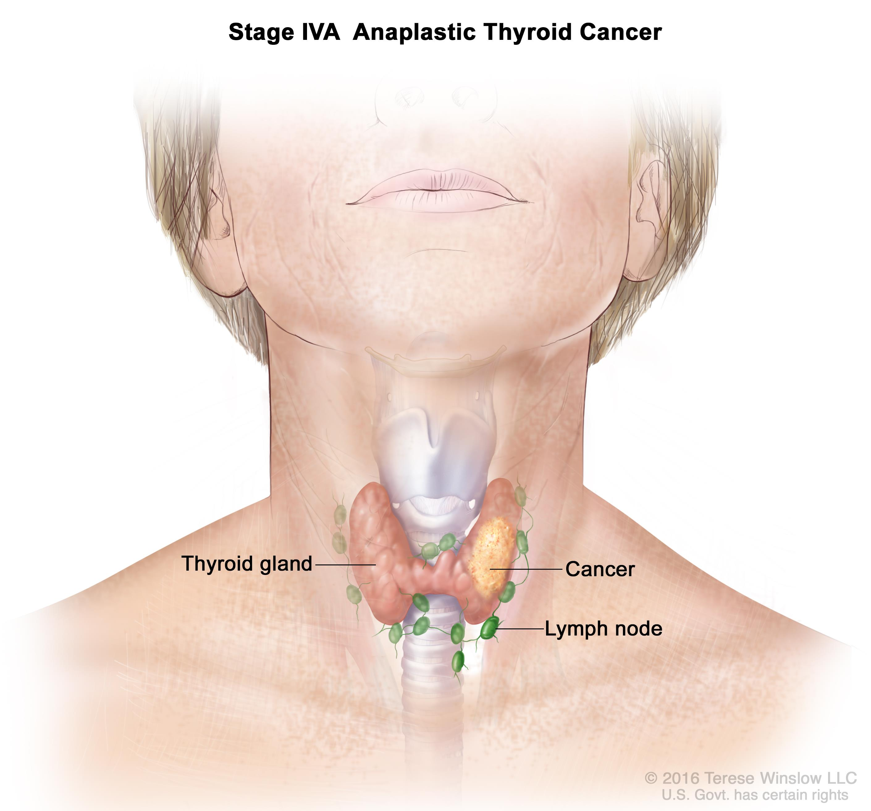 What Is Thyroid Cancer