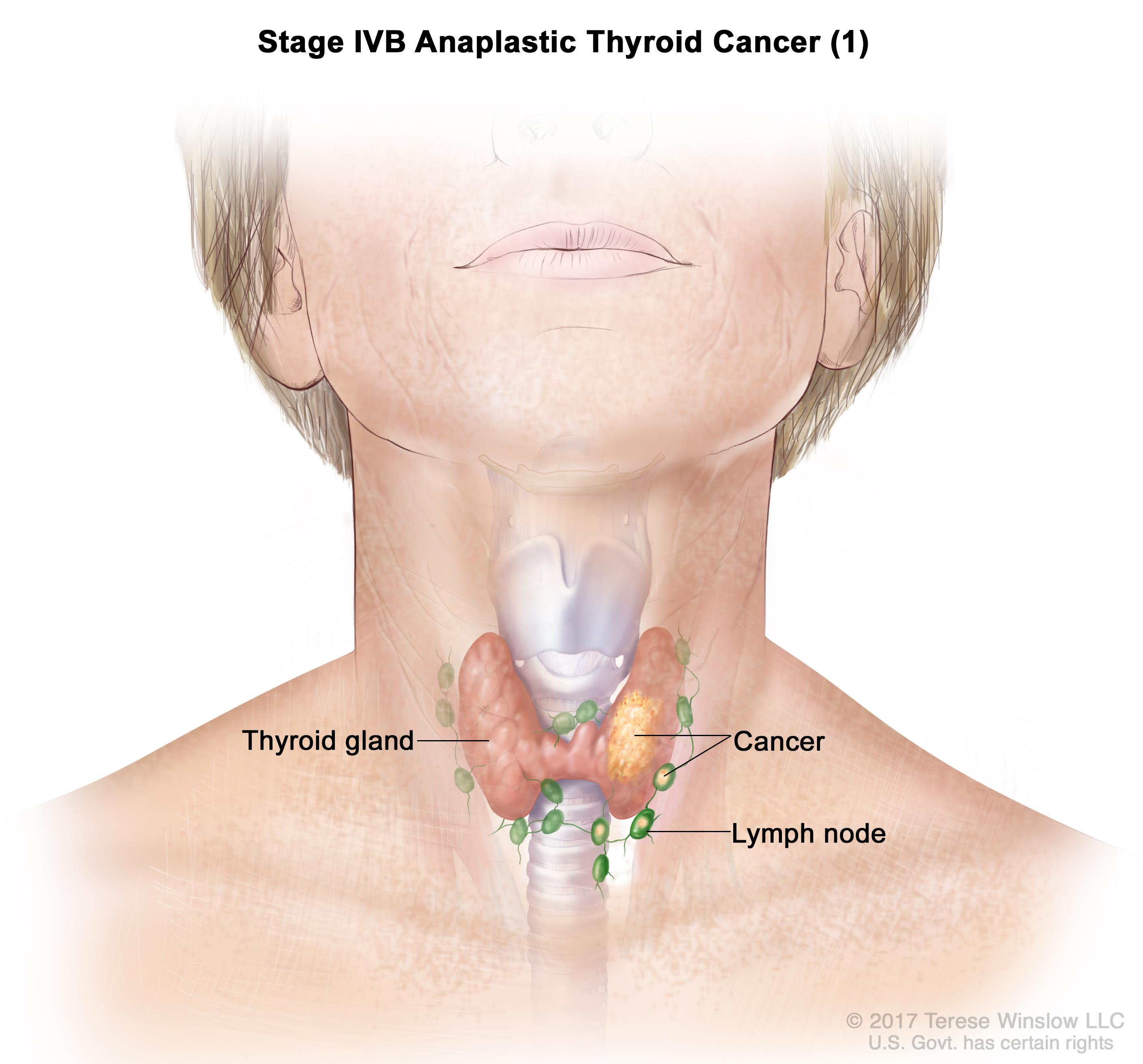 Stage IVB anaplastic thyroid cancer; drawing shows cancer that has spread to tissue just outside the thyroid gland. The lymph nodes are also shown.
