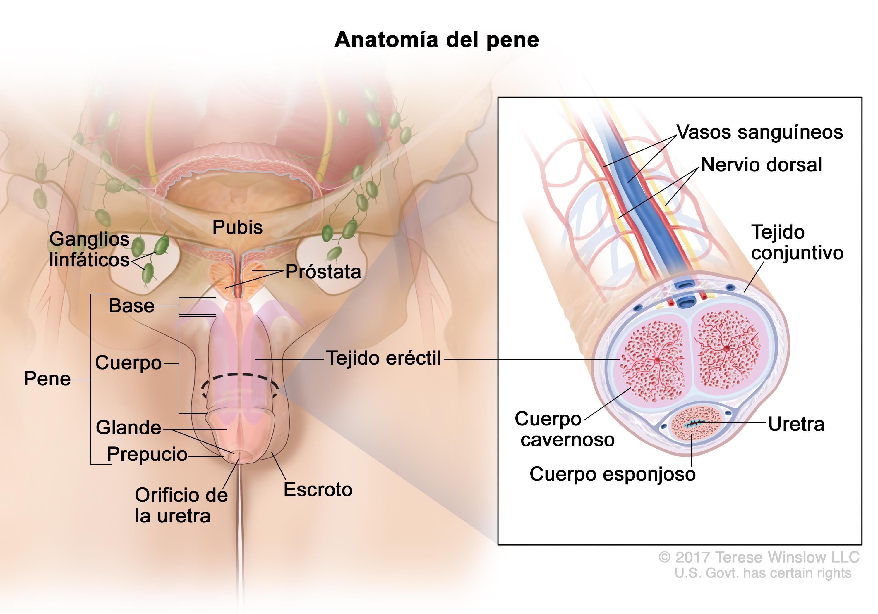 Cáncer de pene (PDQ®)—Versión para pacientes - National Cancer Institute