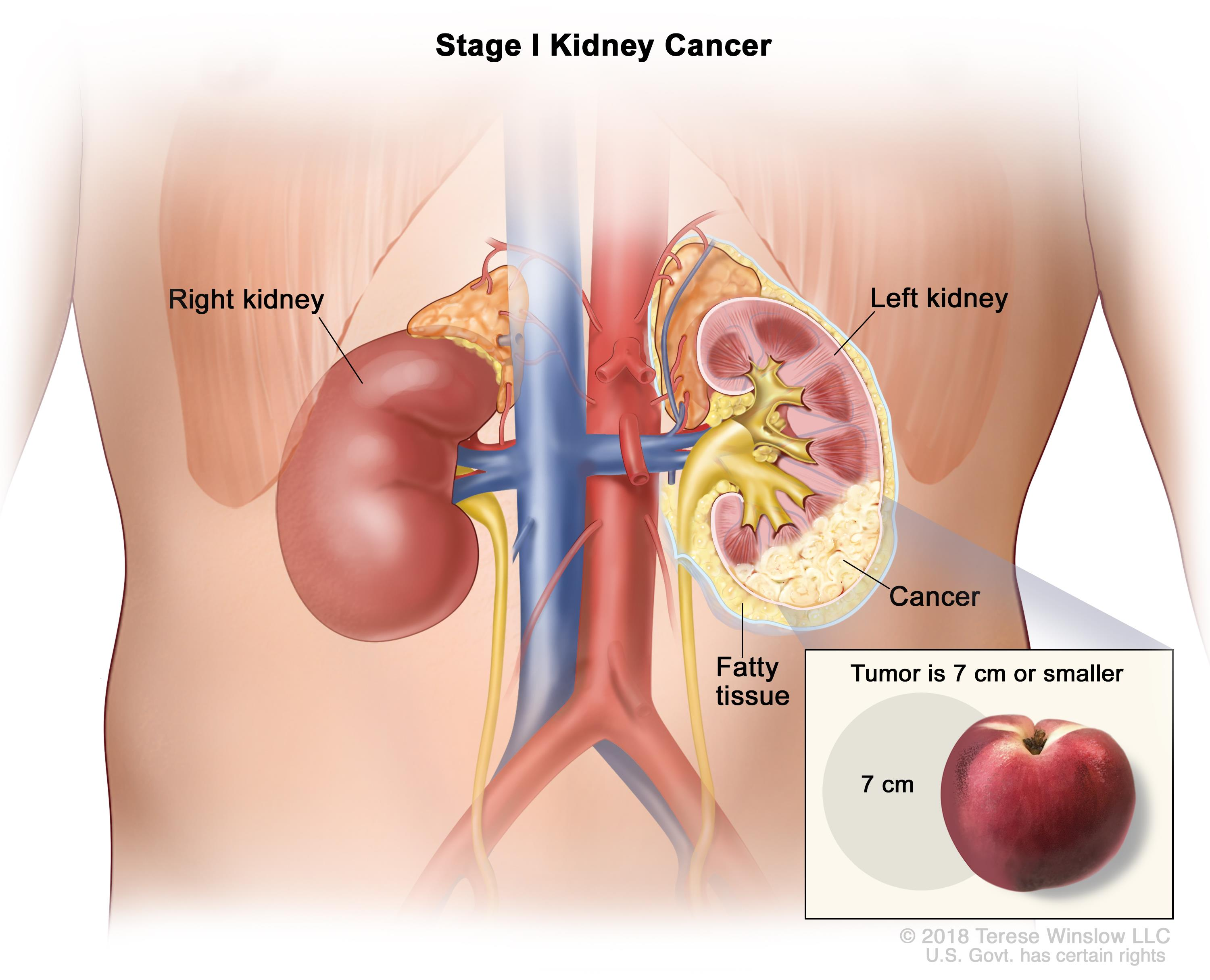 Kidney Renal Cell Cancer Treatment Robert H Lurie Comprehensive