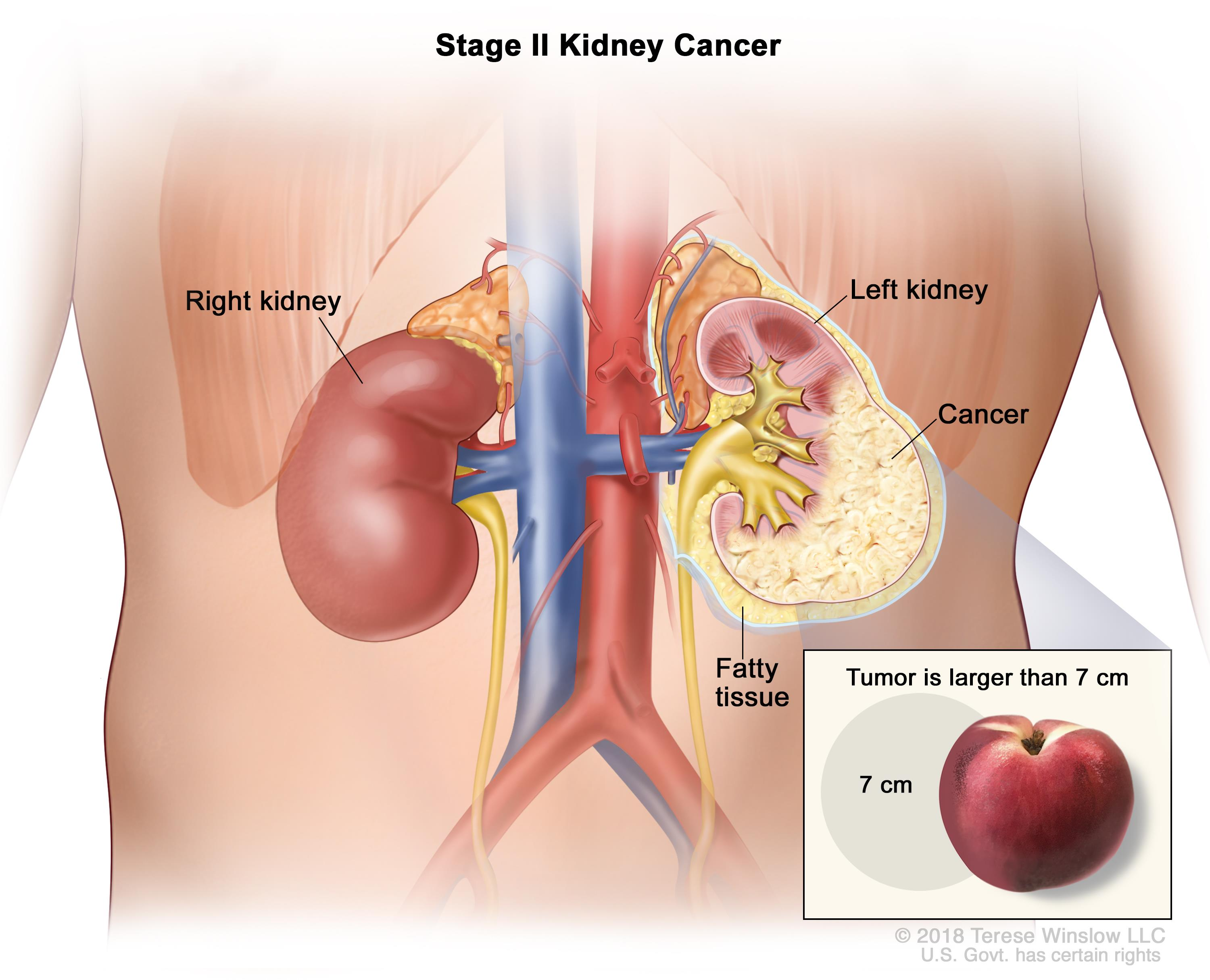 Renal Cell Cancer Treatment Pdqpatient Version National Cancer