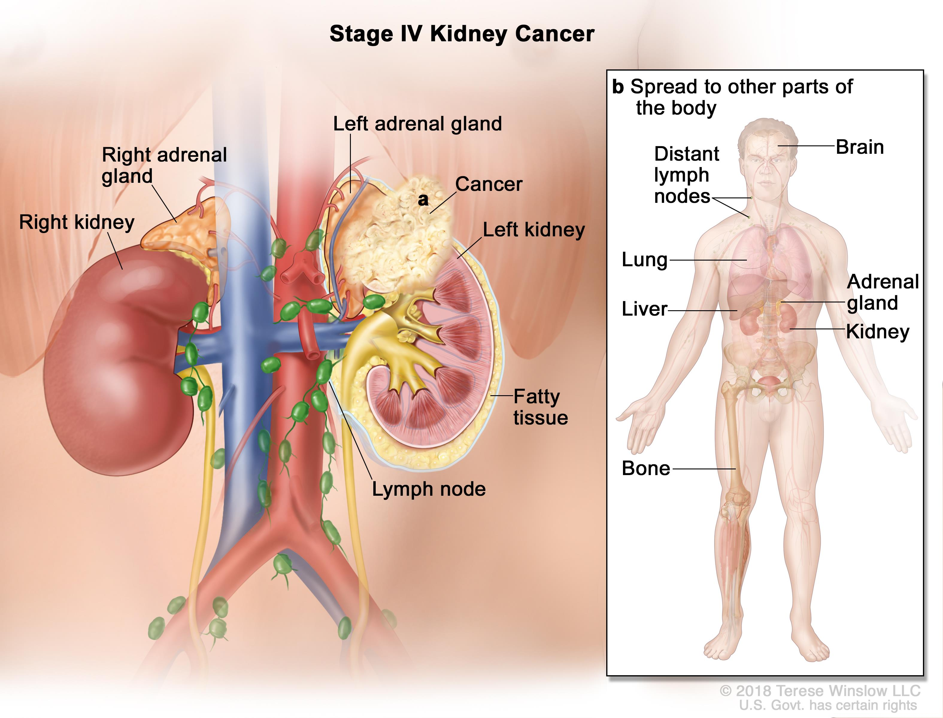 Kidney Renal Cell Cancer Hoa Hematology Oncology Associates Of Cny