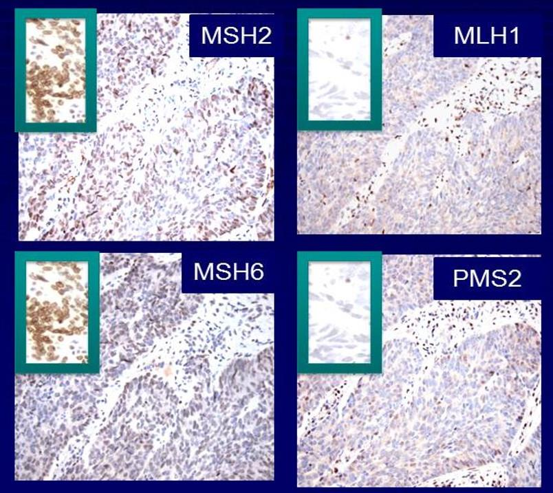 Protein stains of normal and colorectal tumor tissue are shown for a single patient. The stains from the tumor (in four insets) show the presence of MSH2 and MSH6 (the dark stain is visible) and absence of MLH1 and PMS2 (the dark stain is not visible).