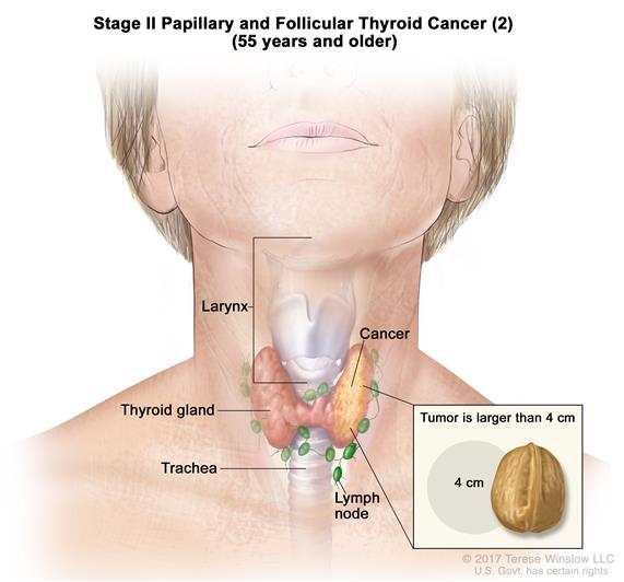 Stage II papillary and follicular thyroid cancer (2) in patients 55 years and older; drawing shows cancer in the thyroid gland and the tumor is larger than 4 centimeters. An inset shows 4 centimeters is about the size of a walnut. Also shown are the lymph nodes, larynx, and trachea.