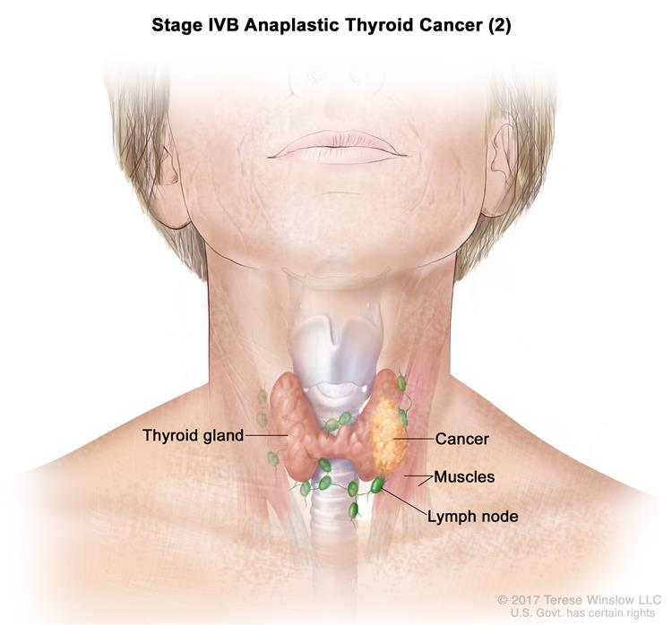 Thyroid Cancer Treatment Adult Pdq 174 Patient Version