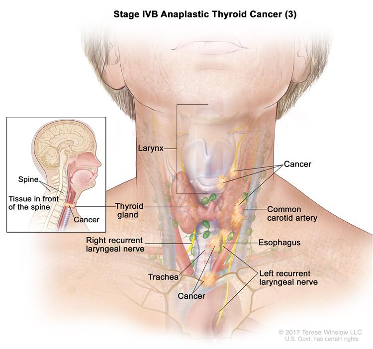 Stage IVB anaplastic thyroid cancer (3); drawing shows cancer in the thyroid gland and in  the esophagus, the trachea, the larynx, the left recurrent laryngeal nerve, and the tissue in front of the spine (inset). Cancer has also surrounded the common carotid artery and the blood vessels in the area between the lungs. Also shown is the right recurrent laryngeal nerve.