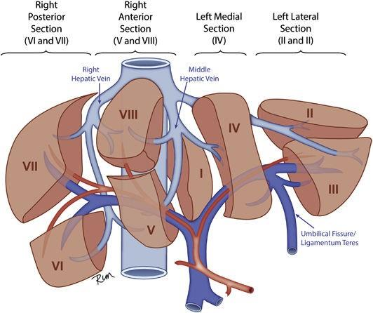 Figure showing 4 sections of the liver: the right posterior section, the right anterior section,  the left medial section, and the left lateral section. The boundaries of each section are defined by the right hepatic vein, the middle hepatic vein, and the umbilical fissure/ligamentum teres. Also shown are 8 anatomic segments (I-VIII), each corresponding to a specific section of the liver.