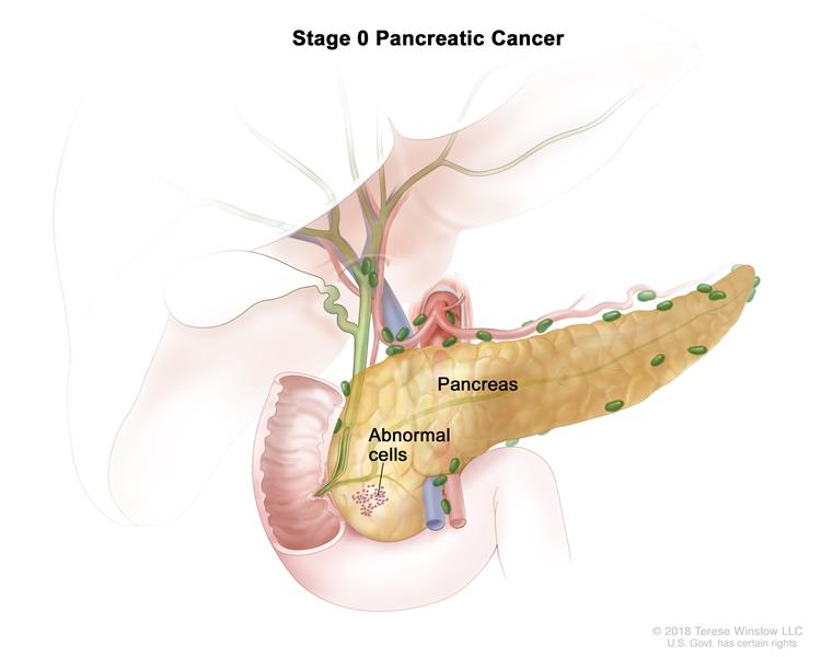 Stage 0 pancreatic cancer; drawing shows abnormal cells in the pancreas.