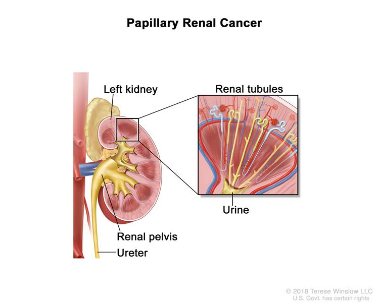 Papillary renal cancer; drawing showing the left kidney, renal pelvis, and ureter. Also shown is a pullout of the renal tubules, which is where urine is made.