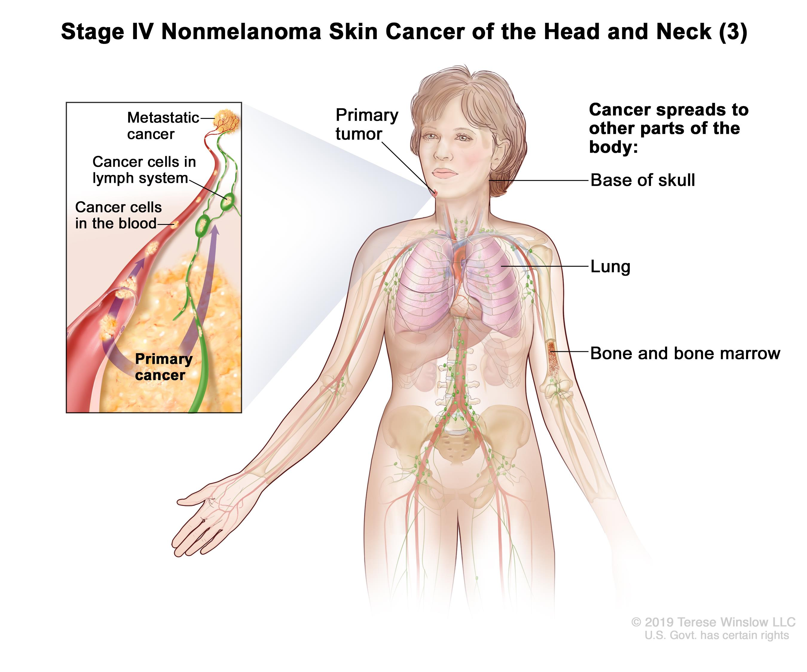 Stage IV nonmelanoma skin cancer of the head and neck (3); drawing shows a primary tumor on the face and other parts of the body where nonmelanoma skin cancer may spread, including the base of the skull, the lung, and the bone and bone marrow. An inset shows cancer cells spreading through the blood and lymph system to another part of the body where metastatic cancer has formed.