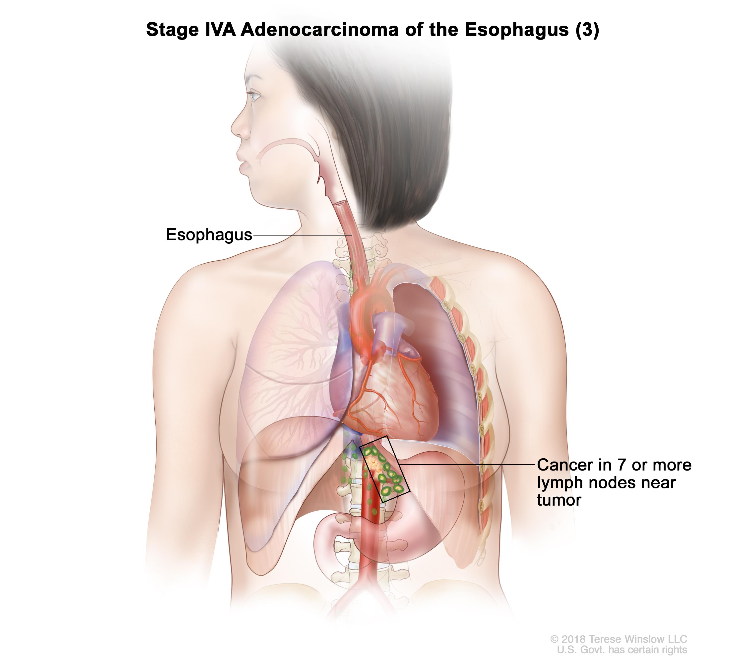 Stage IVA adenocarcinoma of the esophagus (3); drawing shows cancer in the esophagus and in 9 lymph nodes near the tumor.