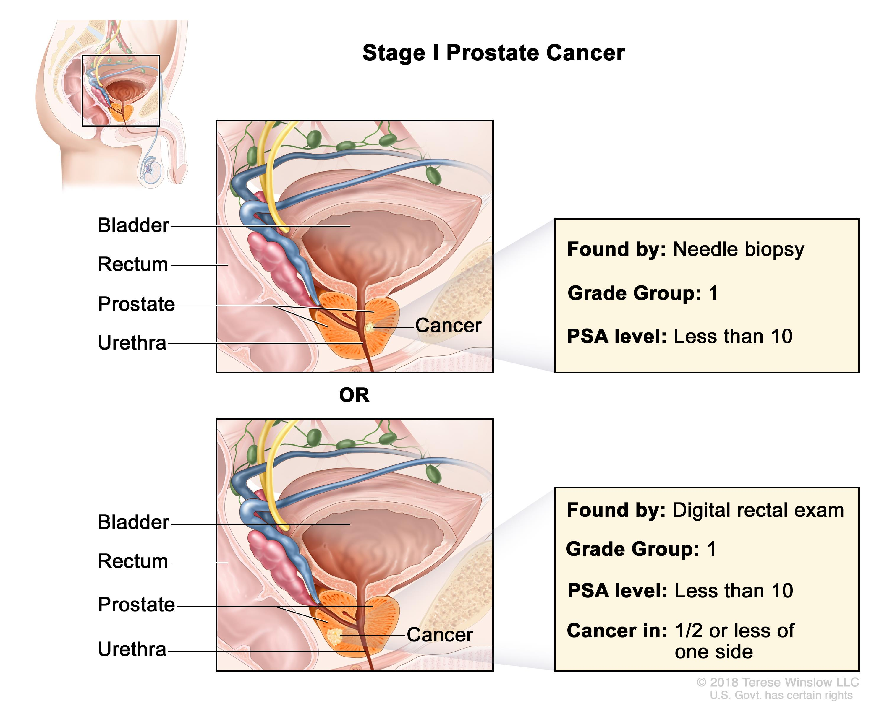 Prostate Cancer Treatment (PDQ®)–Health Professional Version