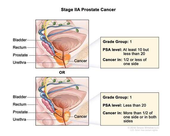 Two-panel drawing of stage IIA prostate cancer; the top panel shows cancer in one-half or less of one side of the prostate. The PSA level is at least 10 but less than 20 and the Grade Group is 1. The bottom panel shows cancer in more than one-half of one side of the prostate. The PSA level is less than 20 and the Grade Group is 1. In both panels, the bladder, rectum, and urethra are also shown.