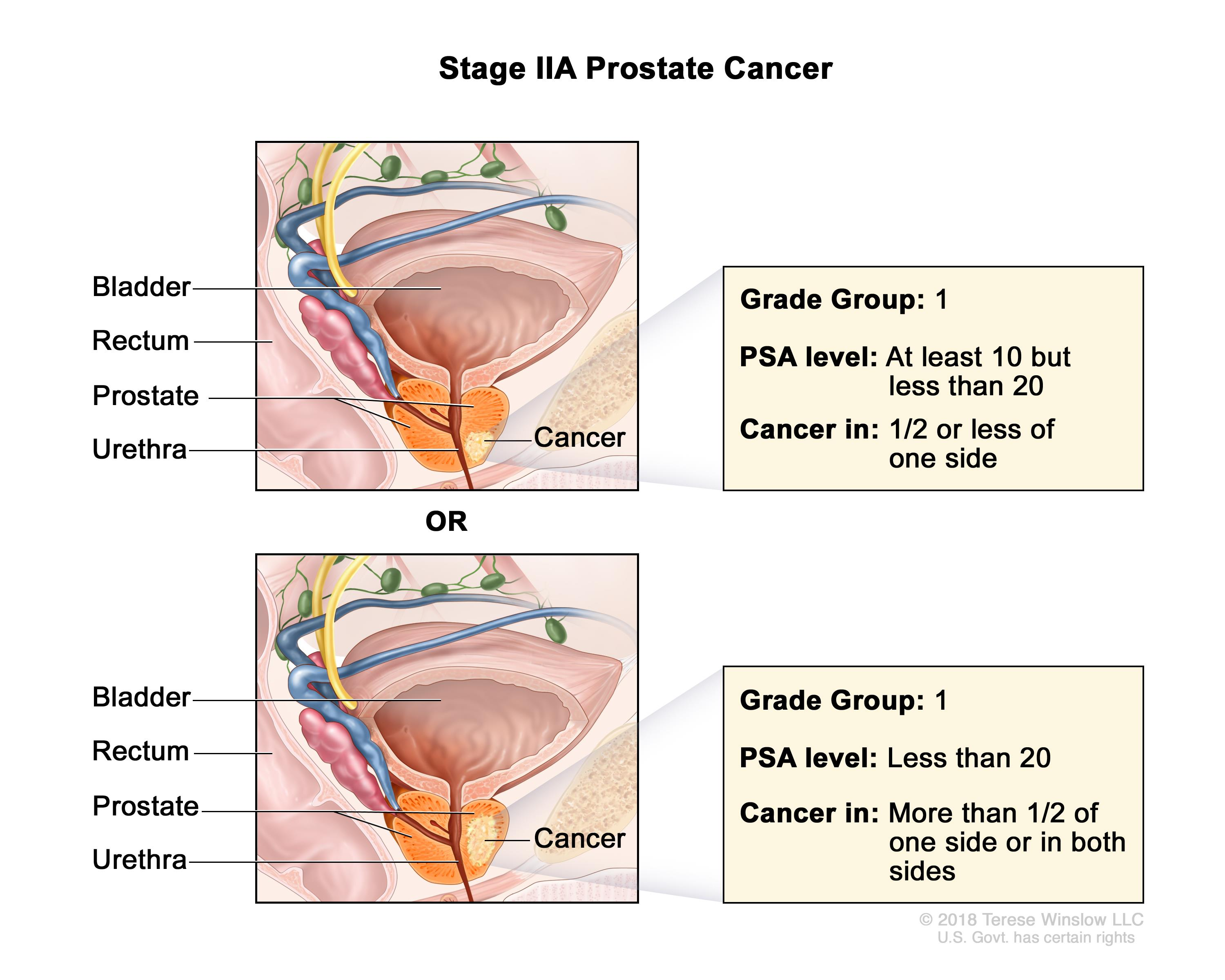 About Prostate Cancer Learn The Signs Of Prostate Cancer And More