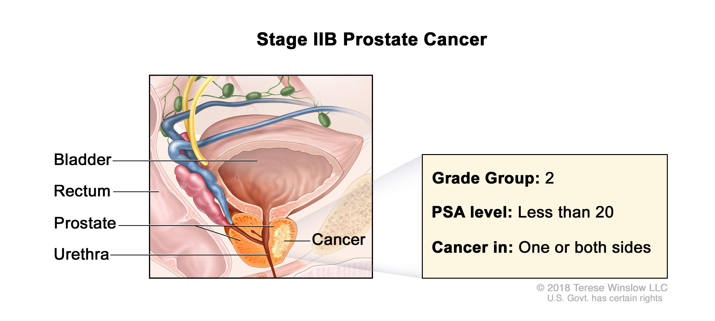 Prostate Cancer Treatment Pdq 174 Health Professional