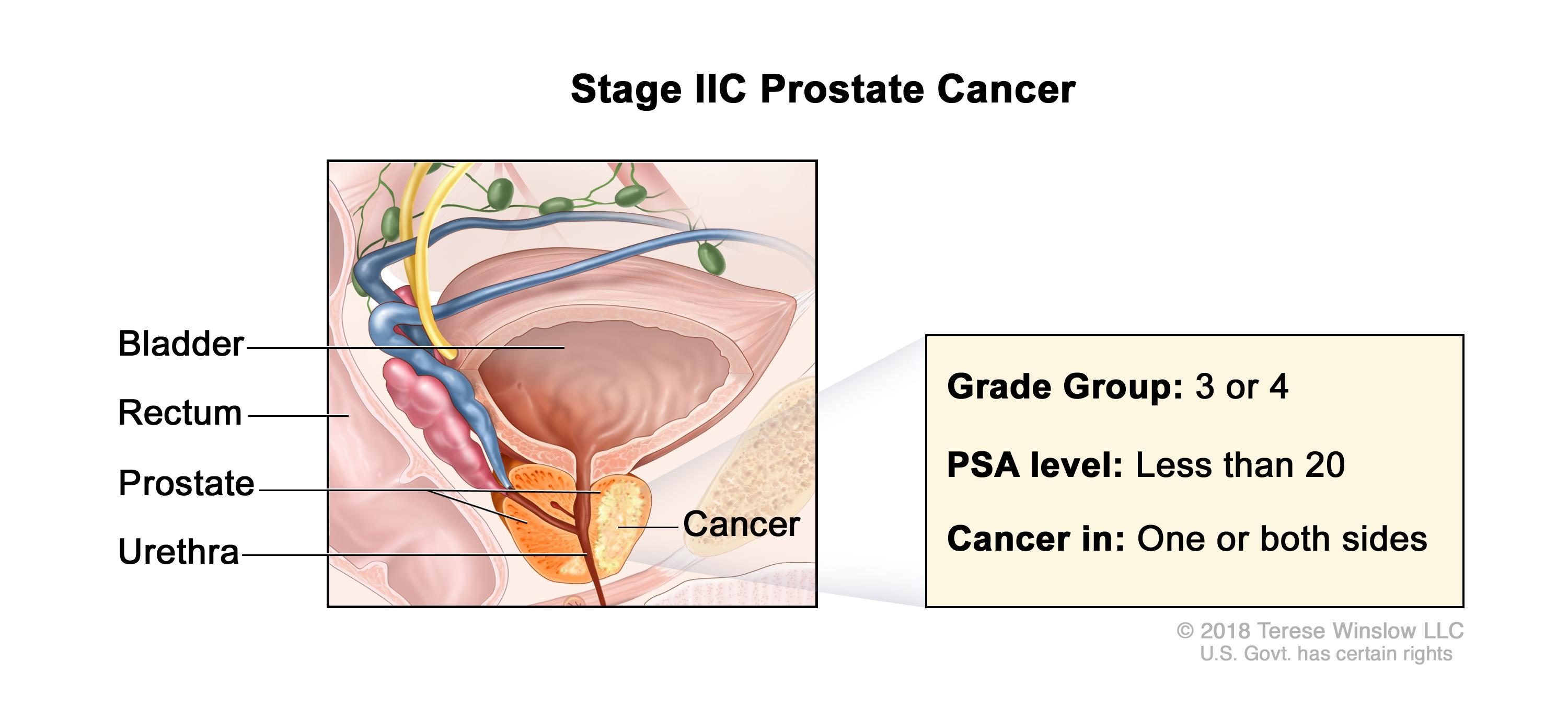 Prostate Cancer Treatment Pdqhealth Professional Version