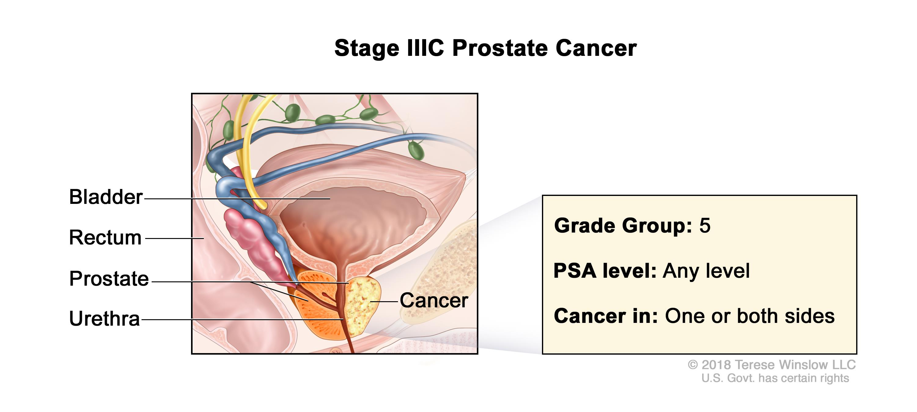 prostate cancer stages t1c