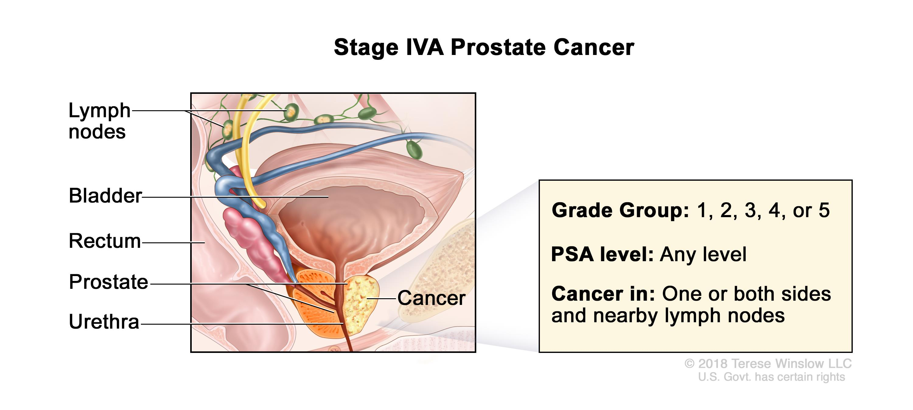 Prostate Cancer Treatment Pdq Patients Oncolink