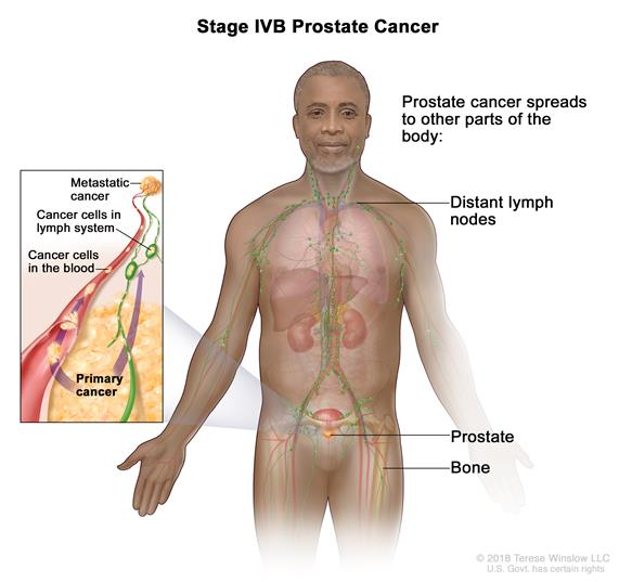 Stage IVB prostate cancer; drawing shows other parts of the body where prostate cancer may spread, including the distant lymph nodes and bones. An inset shows cancer cells spreading from the prostate, through the blood and lymph system, to another part of the body where metastatic cancer has formed.