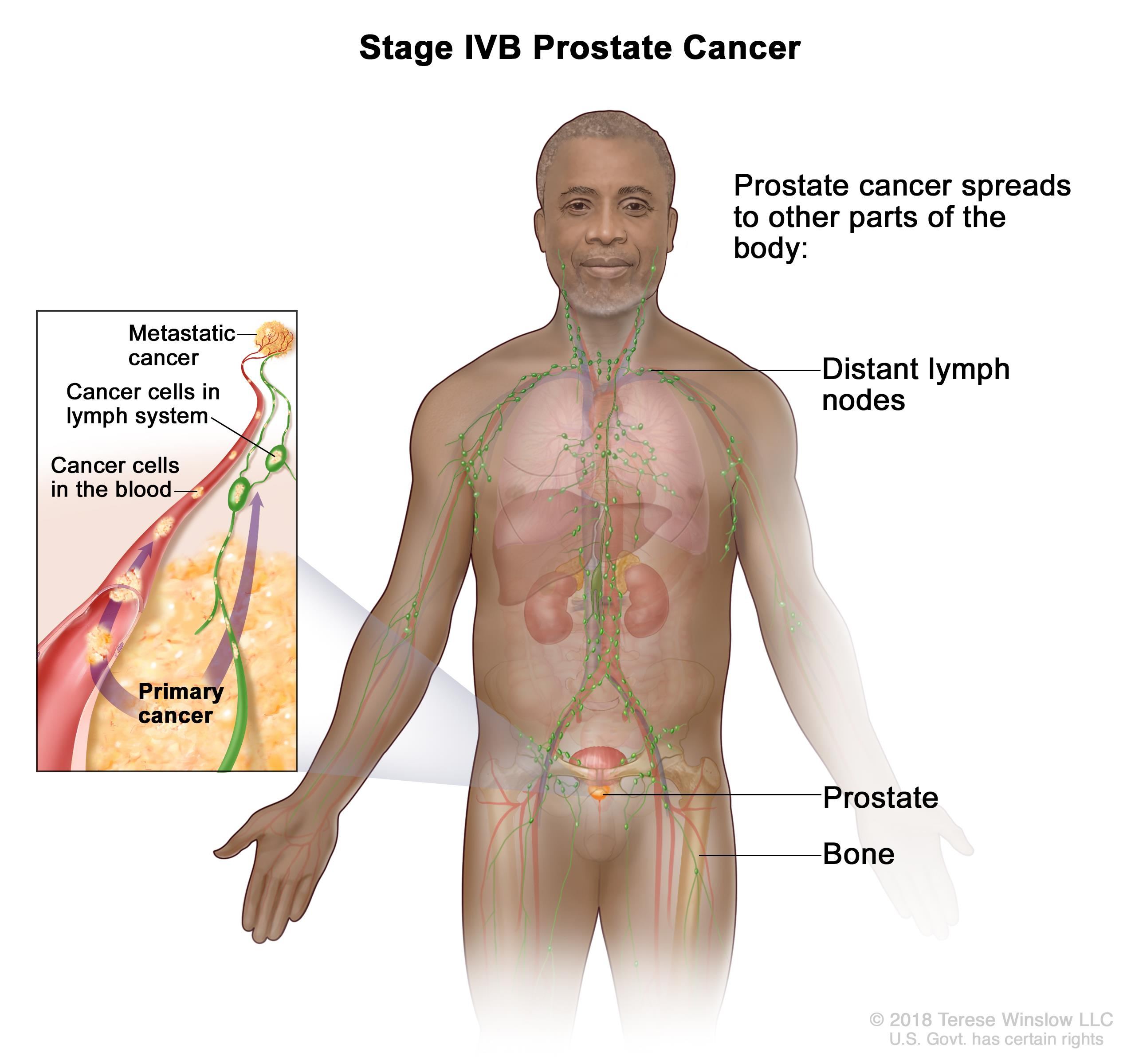 Prostate Cancer Treatment Pdq Health Professionals Oncolink
