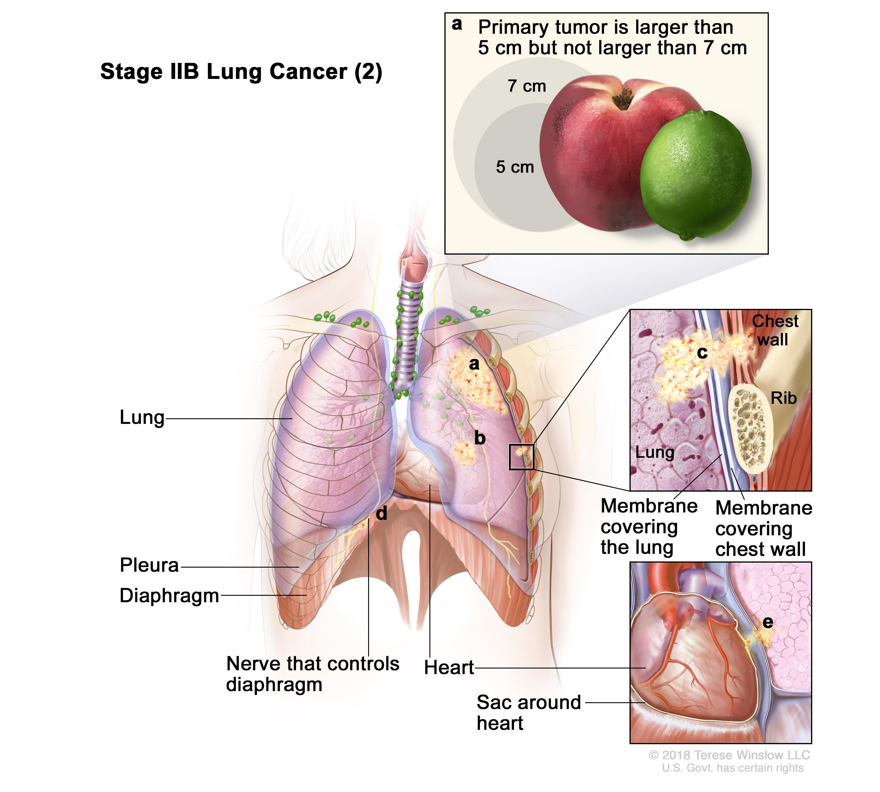 Stage IIB lung cancer (2); drawing shows (a) a primary tumor (larger than 5 cm but not larger than 7 cm) in the left lung (top inset) and (b) a separate tumor in the same lobe of the lung as the primary tumor. Also shown is cancer that has spread to (c) the chest wall and the membranes covering the lung and chest wall (middle inset); (d) the nerve that controls the diaphragm; and (e) the sac around the heart (bottom inset). The pleura, diaphragm, heart, and a rib (middle inset) are also shown.